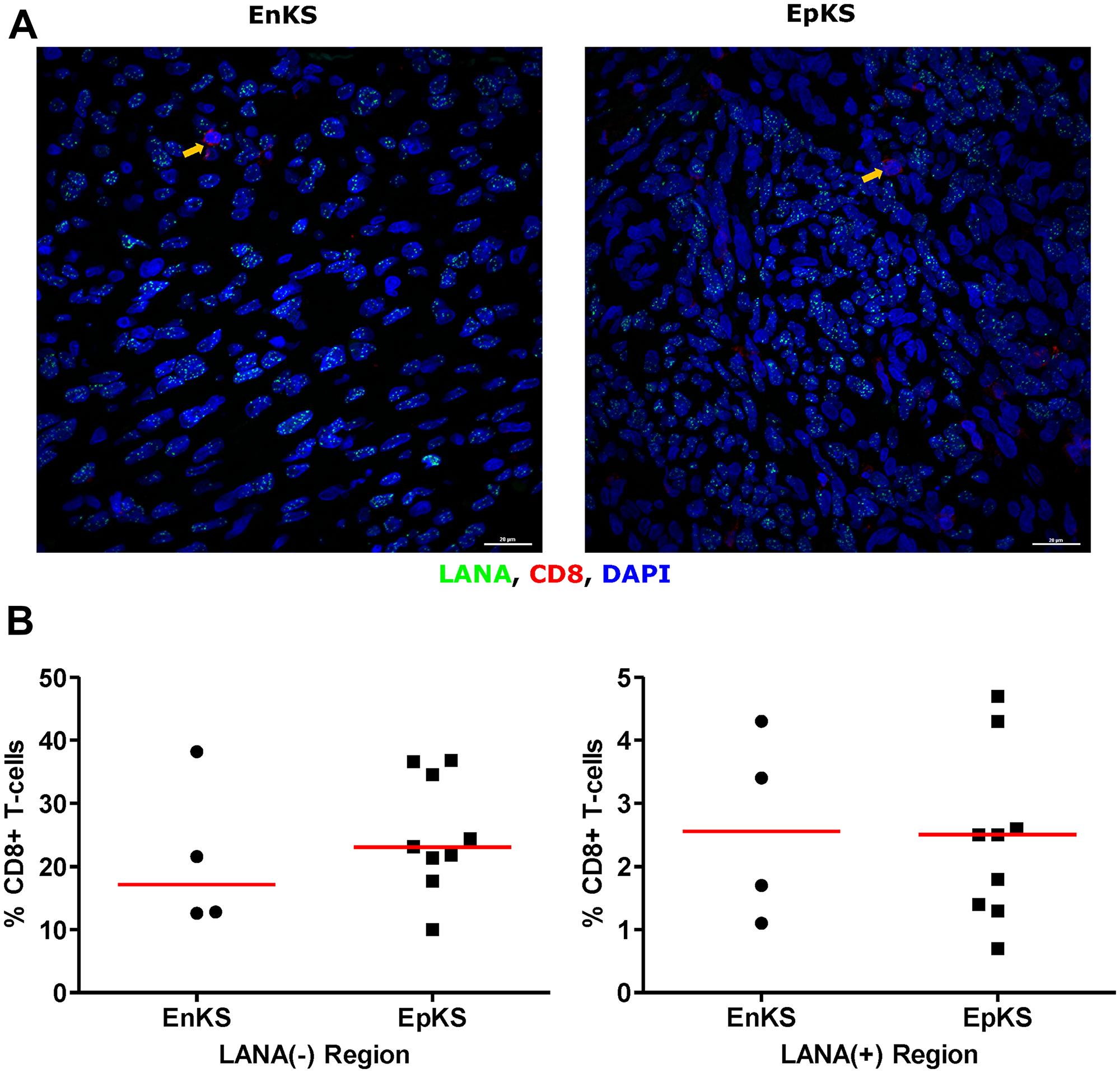Dual-immunofluorescence staining of Kaposi's Sarcoma-associated Herpesvirus (KSHV) Latency Associated Nuclear Antigen (LANA) protein and CD8+ T-cells on Kaposi's Sarcoma (KS) tissues.