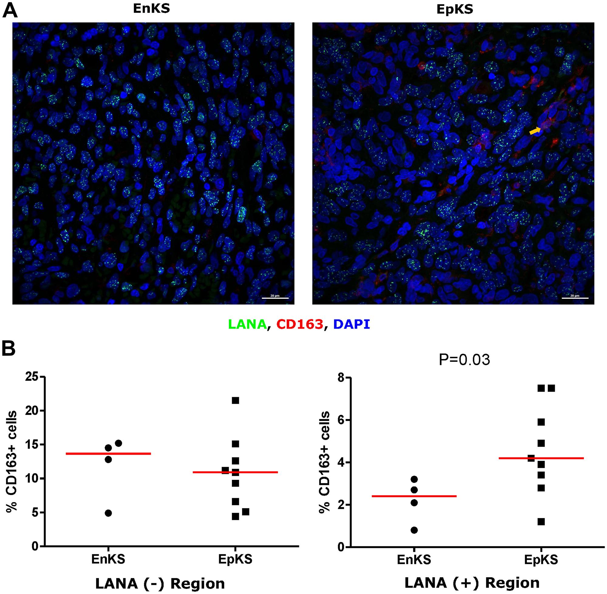 Dual-immunofluorescence staining of Kaposi's Sarcoma-associated Herpesvirus (KSHV) Latency Associated Nuclear Antigen (LANA) protein and CD163 on Kaposi's Sarcoma (KS) tissues.