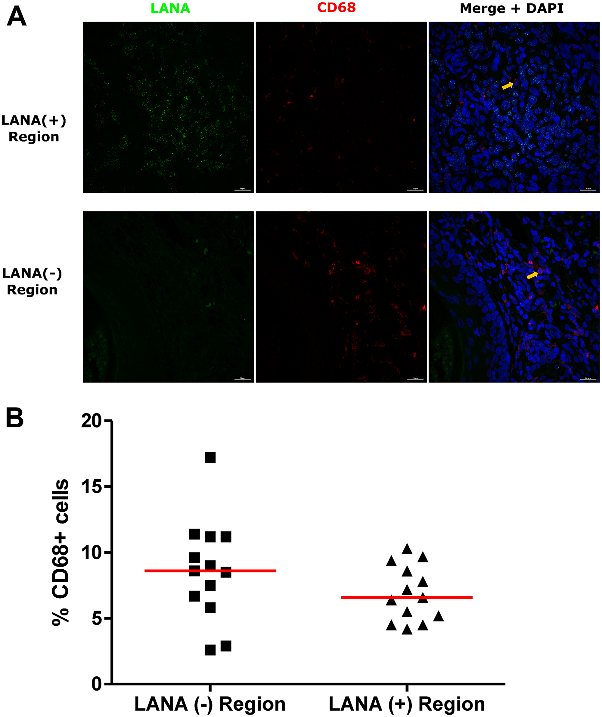 Dual-immunofluorescence staining of Kaposi's Sarcoma-associated Herpesvirus (KSHV) Latency Associated Nuclear Antigen (LANA) protein and CD68 on Kaposi's Sarcoma (KS) tissues.