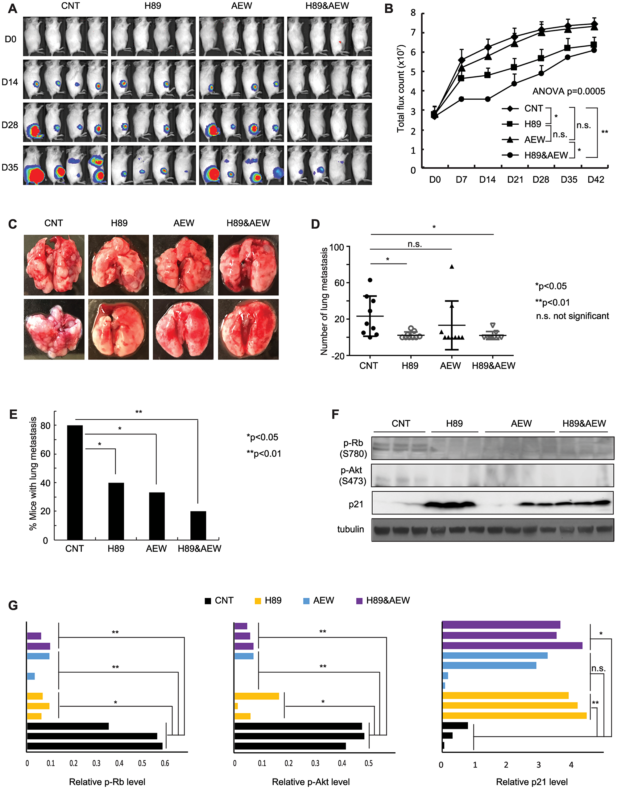 Combination of PPP1R1A and IGF-1R inhibition is more active in limiting ES tumor growth and metastasis than either individual treatment in an orthotopic xenograft mouse model.