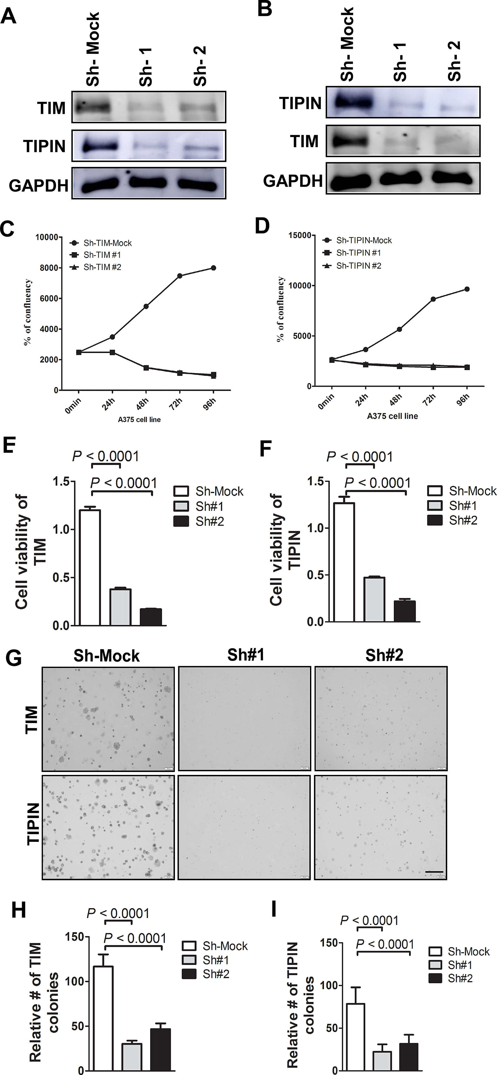 Knockdown of TIM/TIPIN inhibits melanoma cell proliferation.