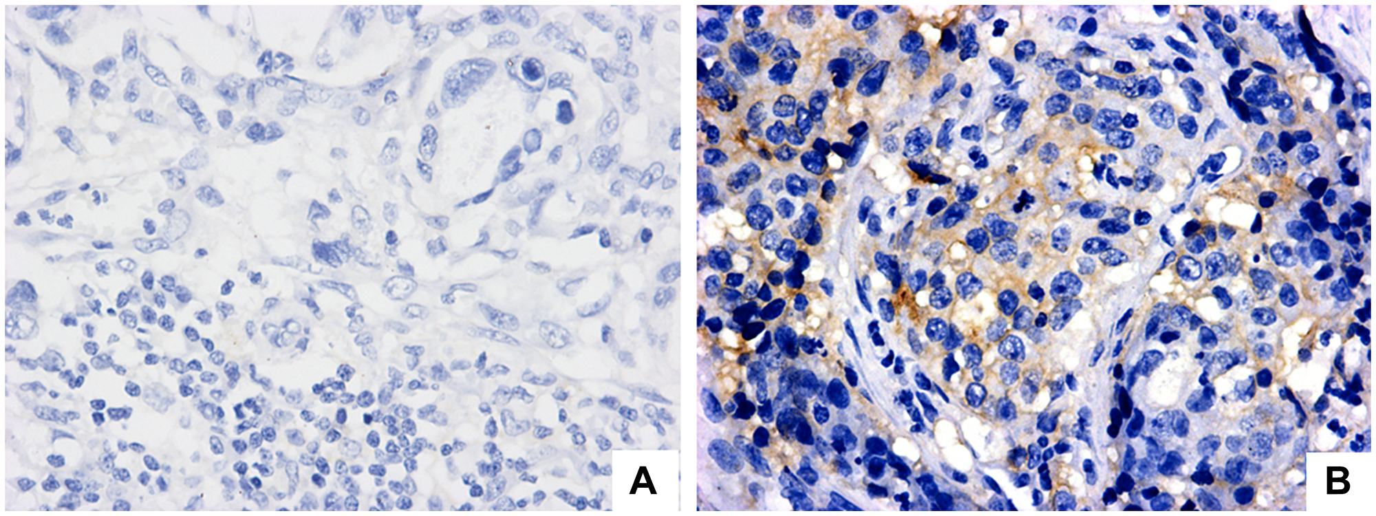 PD-L1 expression evaluation in regional lymph node with metastatic gastric adenocarcinoma (positive lymph node).