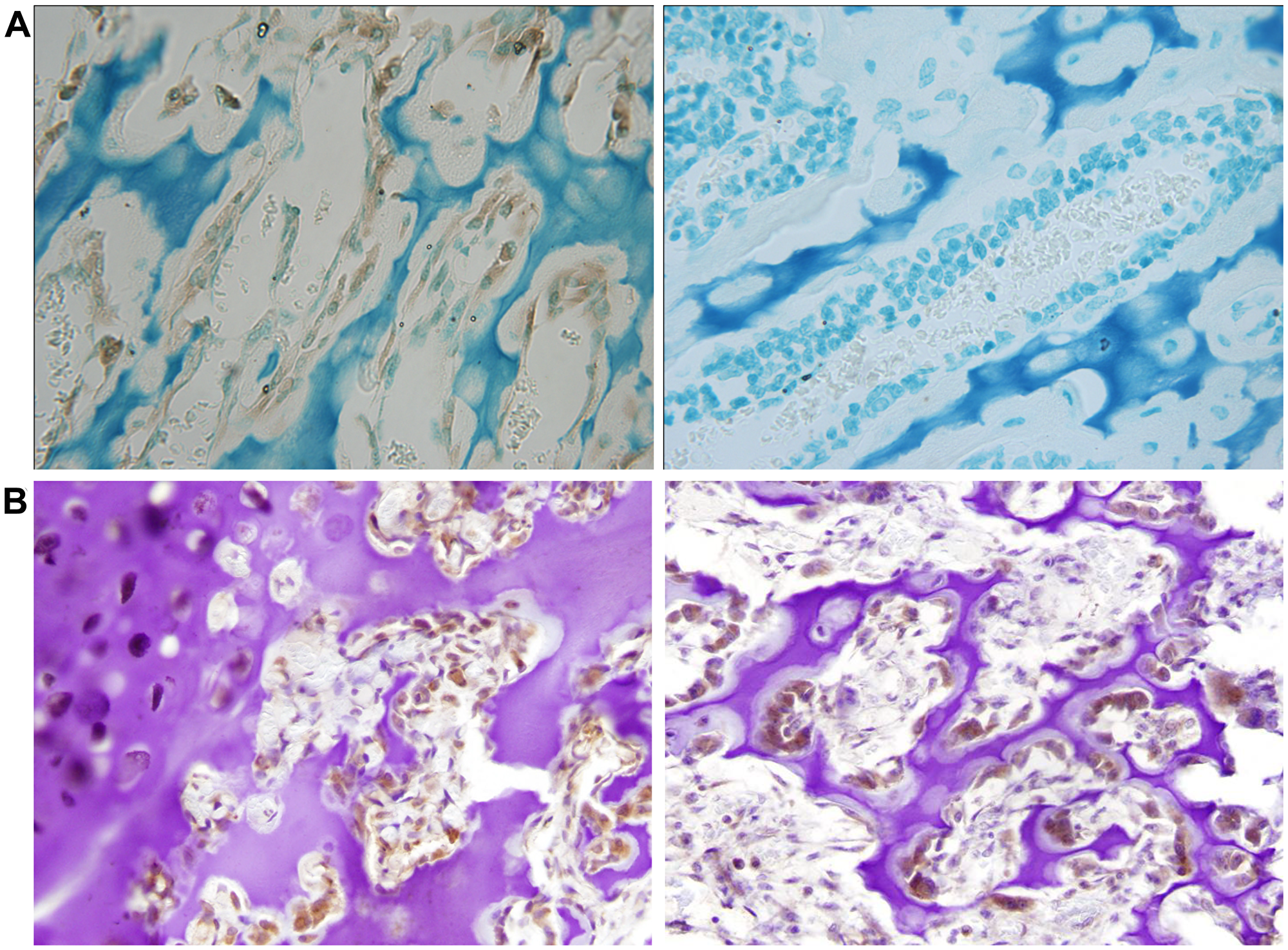 Neuronatin protein expression is detectable in normal bone and cartilage tissues.