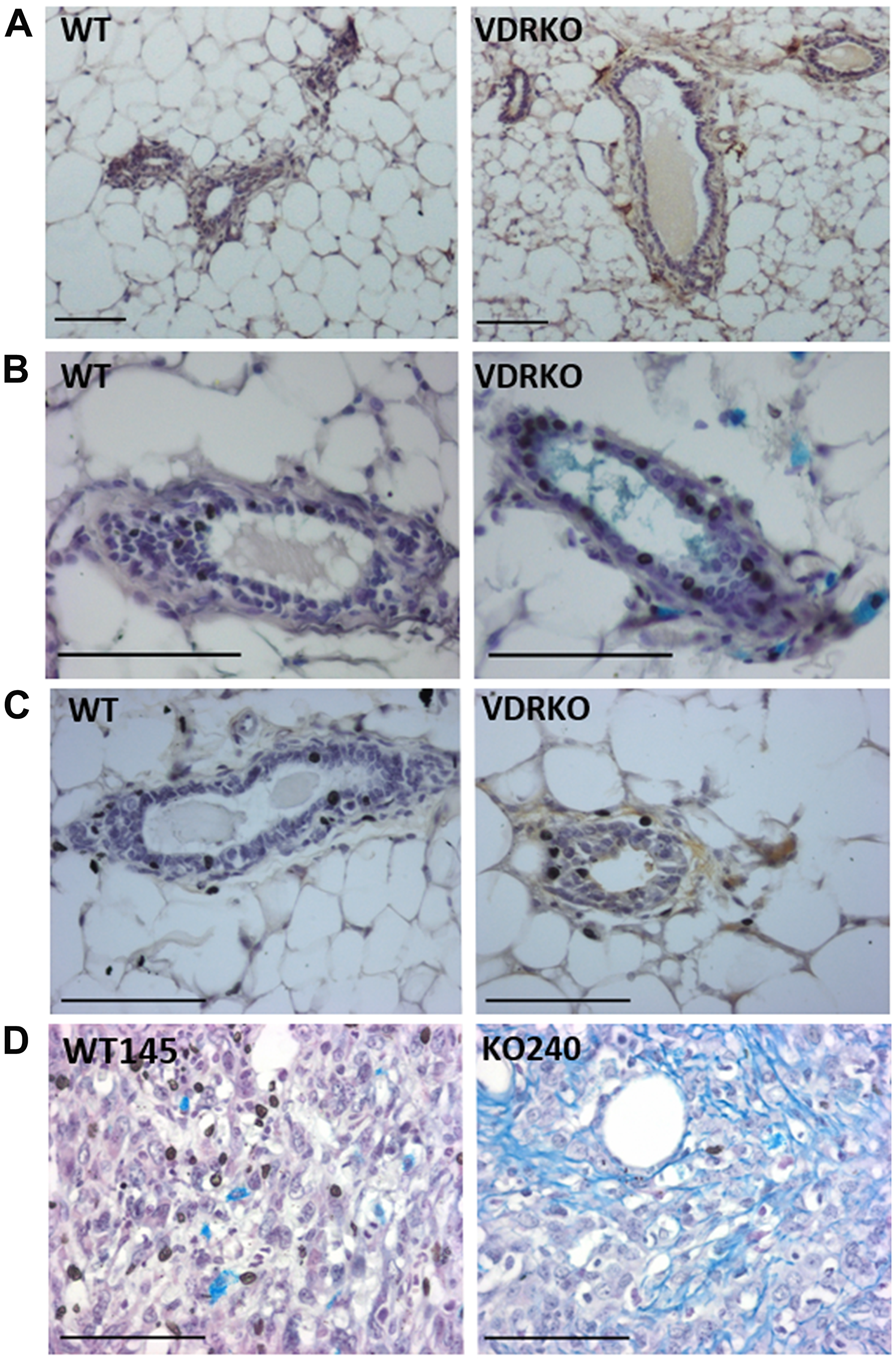 HAS2, glycosaminoglycans and HA localization in wild-type and VDRKO mice.