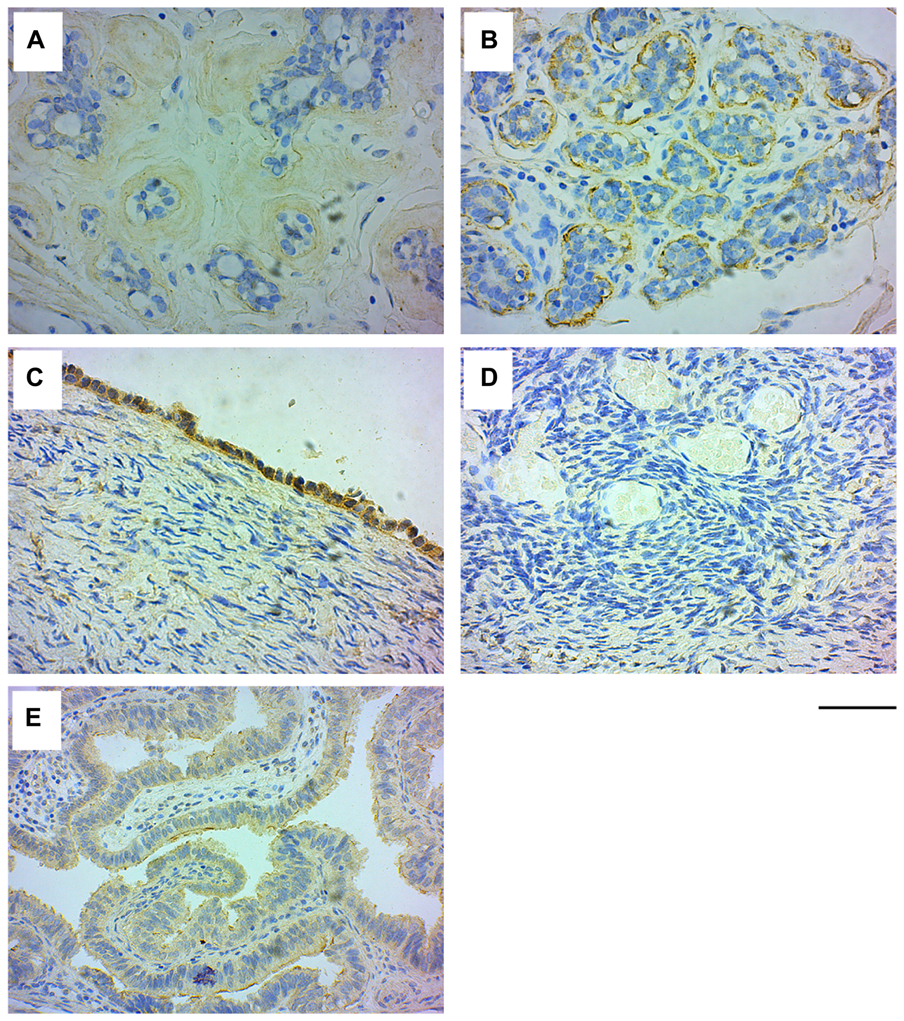 GRB7 expression in normal breast and ovarian tissues.