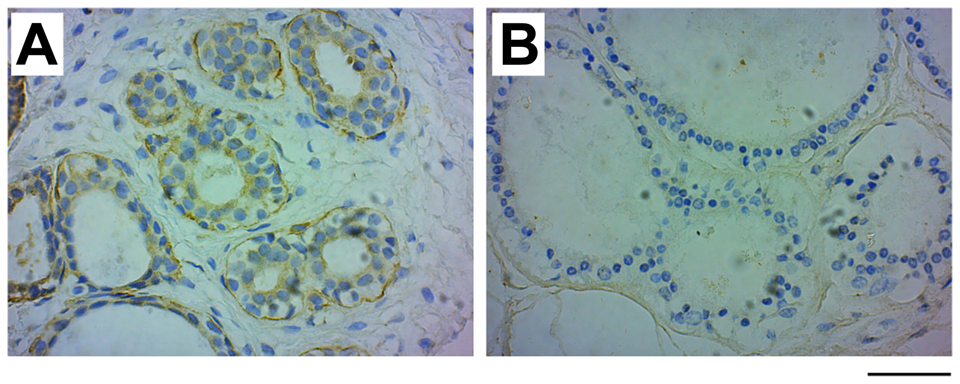 GRB7 expression in benign fibroadenoma and fibrocystic changes.