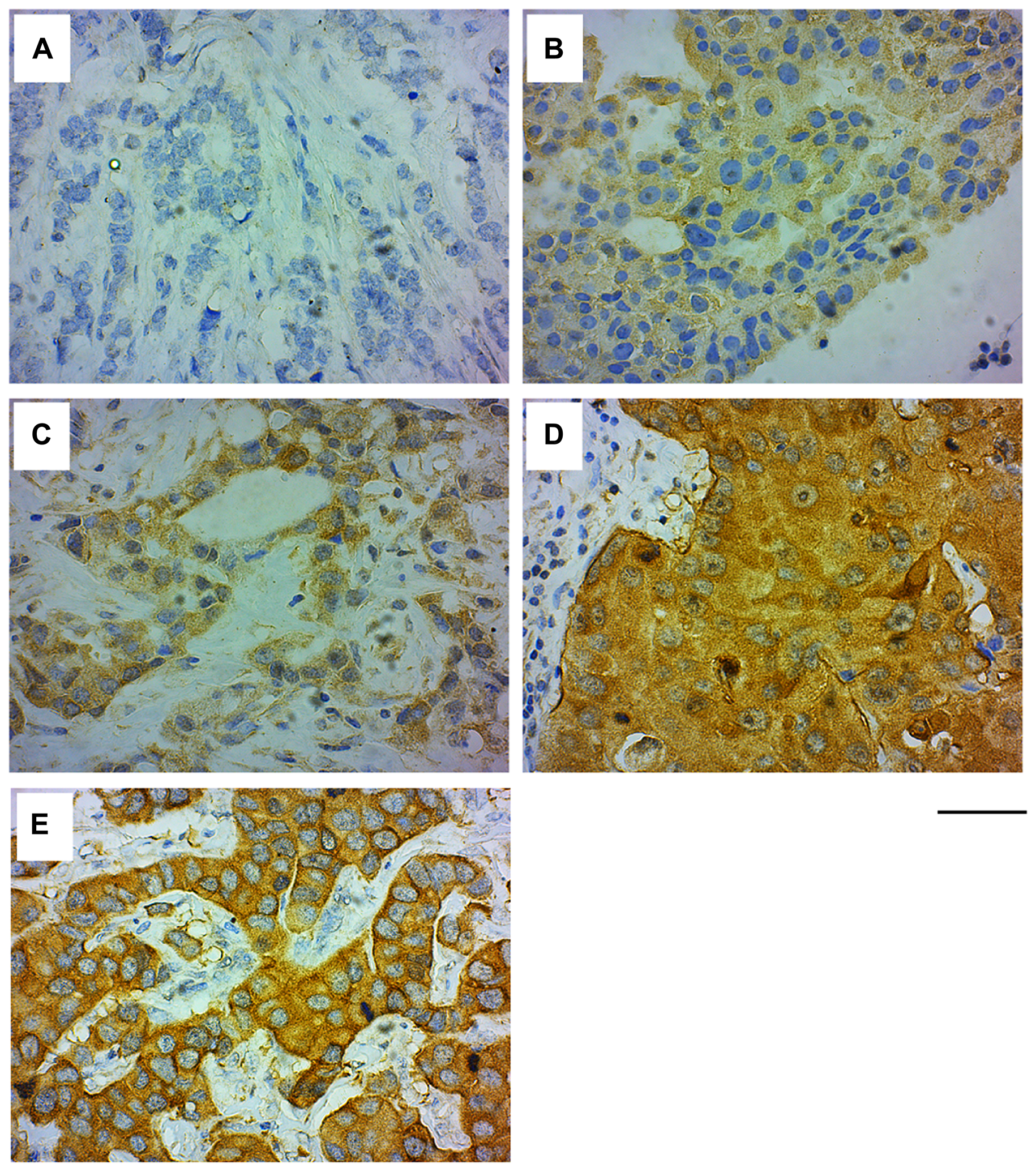 GRB7 expression and localization in invasive ductal carcinoma (IDC) of the breast.