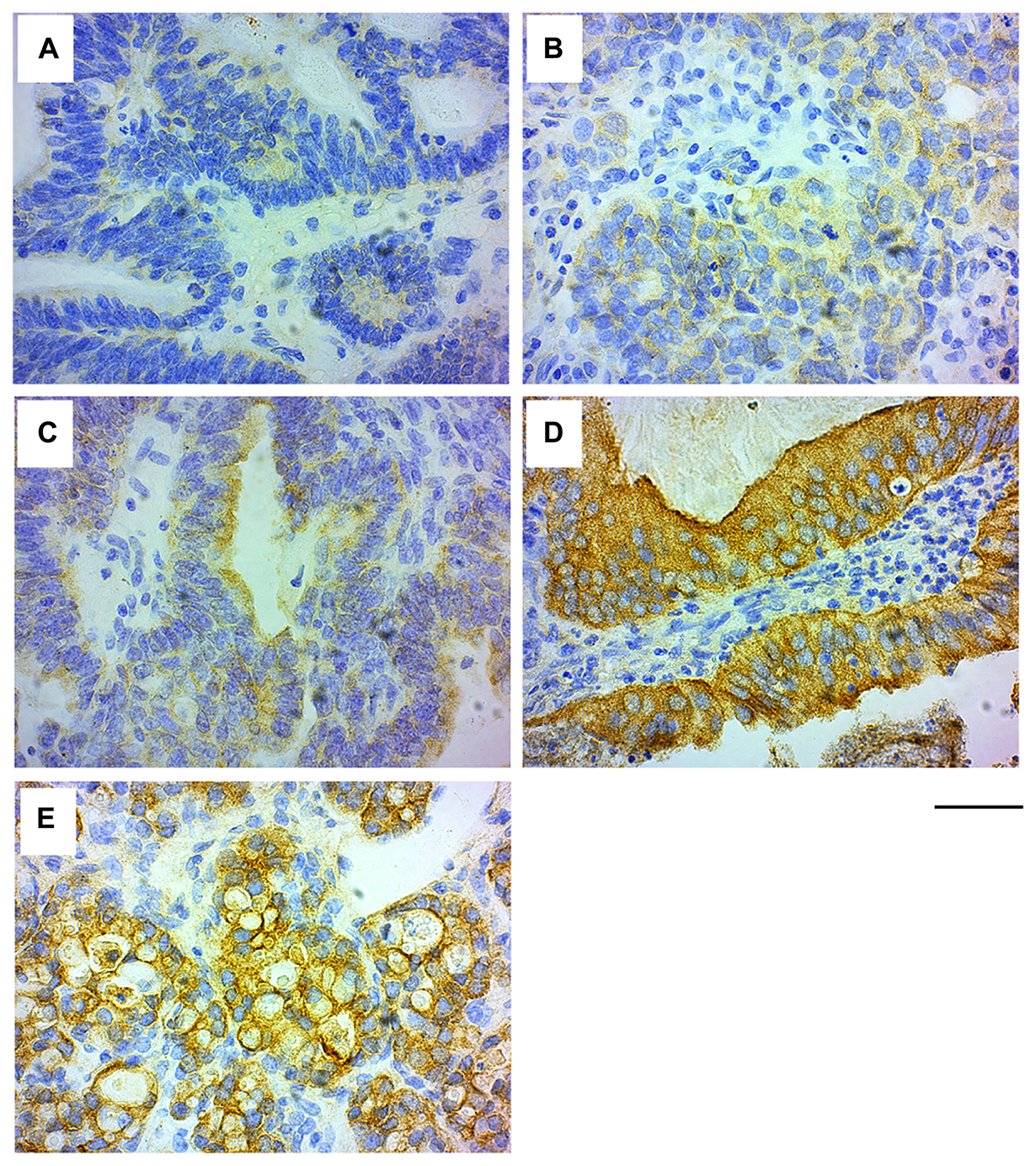 GRB7 expression in ovarian carcinoma cells.