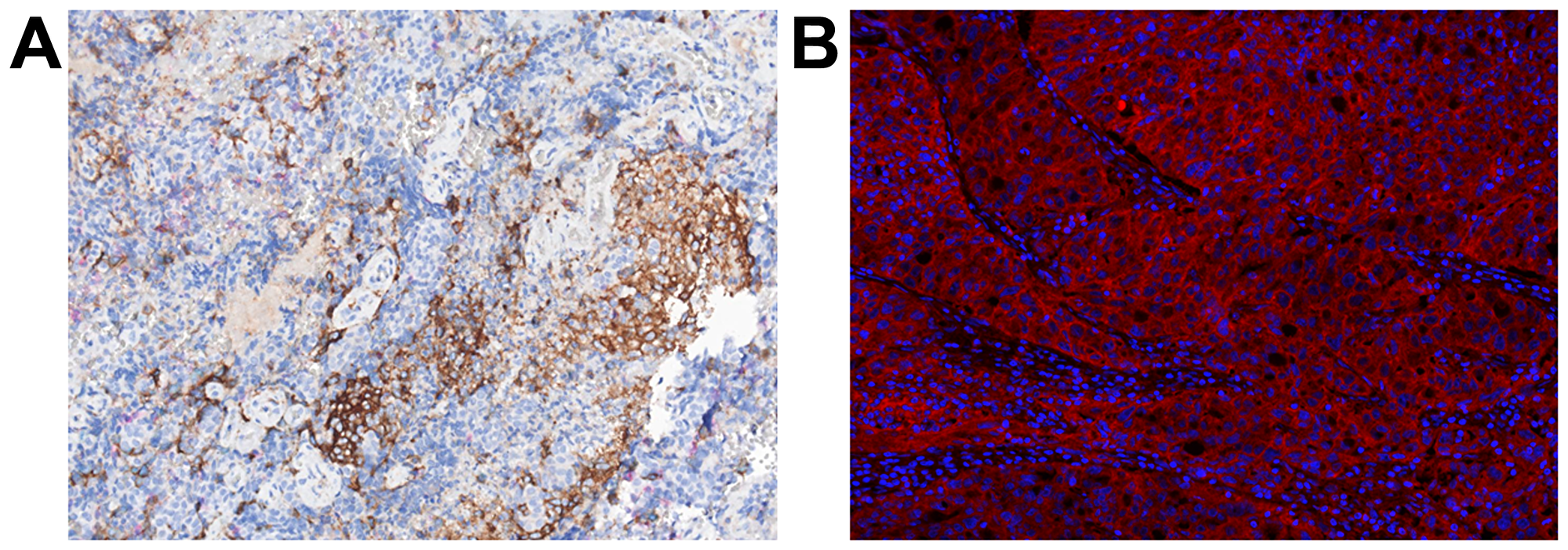 Immunohistochemistry and immunofluorescence of tumor tissue.