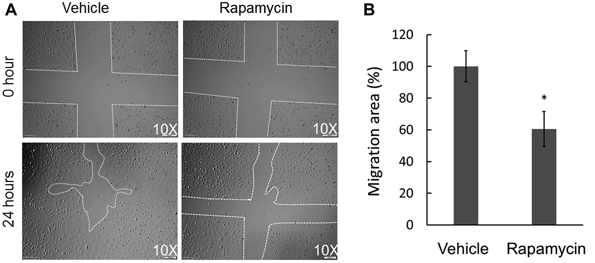 Effect of rapamycin on the in vitro wound healing ability of COS-33 cells.