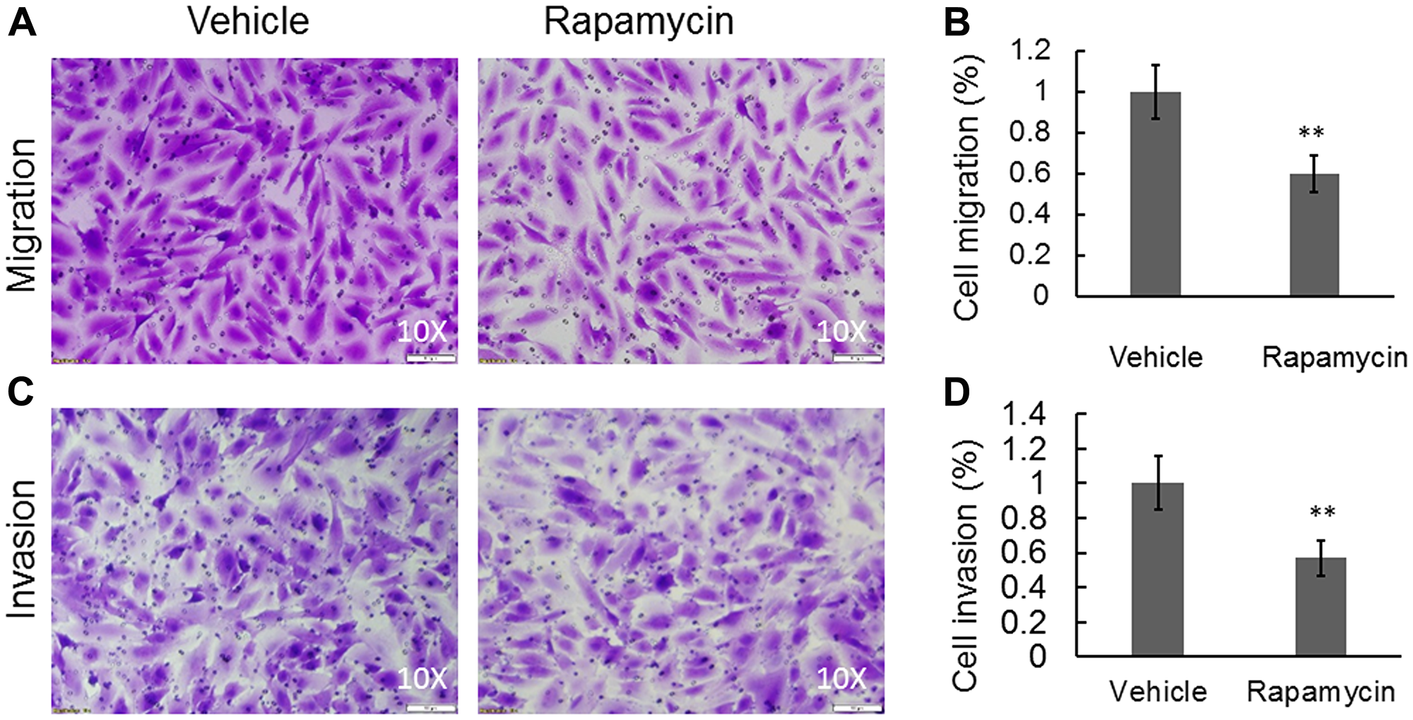 Rapamycin was able to significantly inhibit cell migration and invasion in a Boyden chamber-based system.
