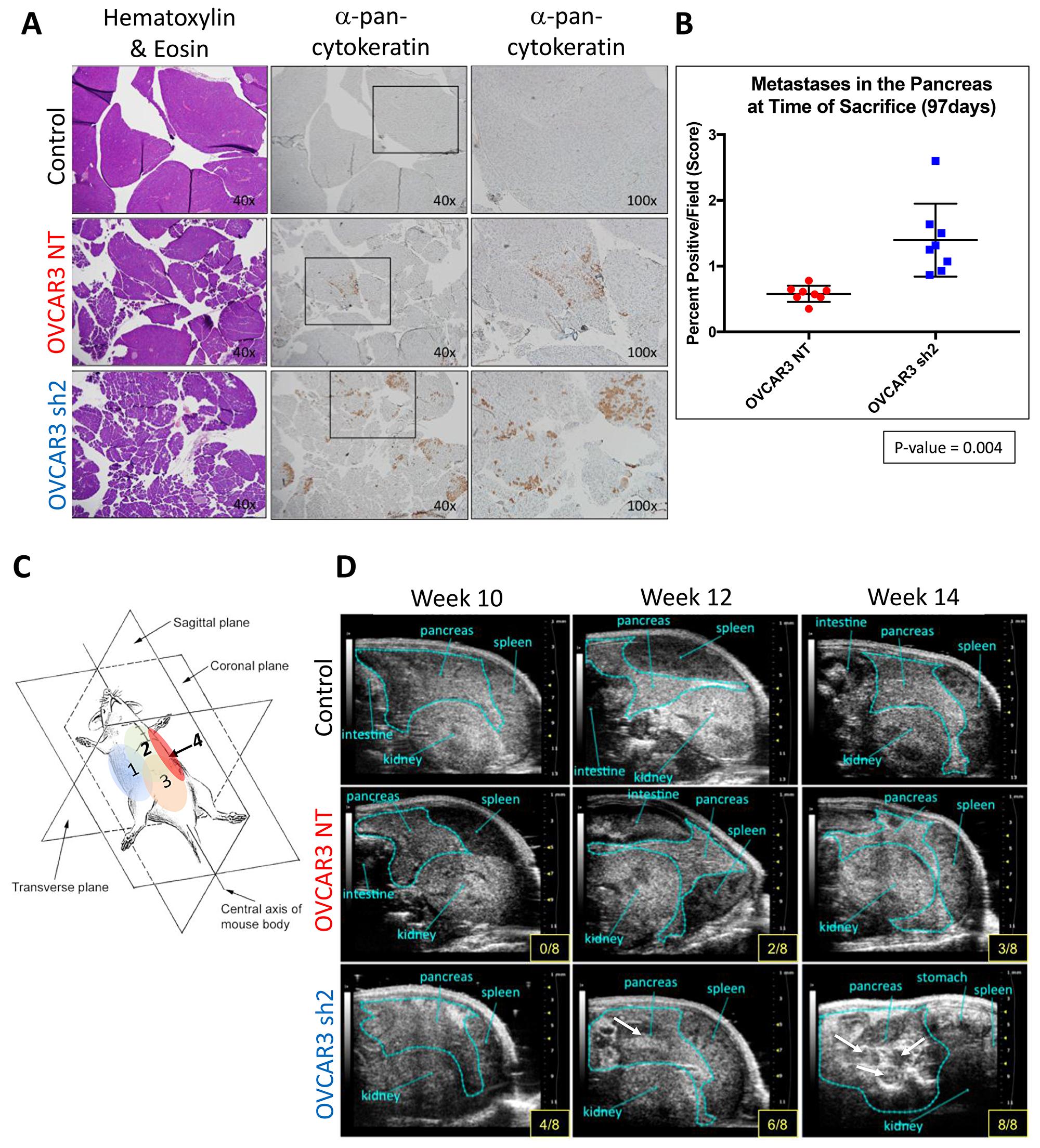 SUSD2-KD mice showed increased pancreatic tumor burden at initial time of sacrifice.