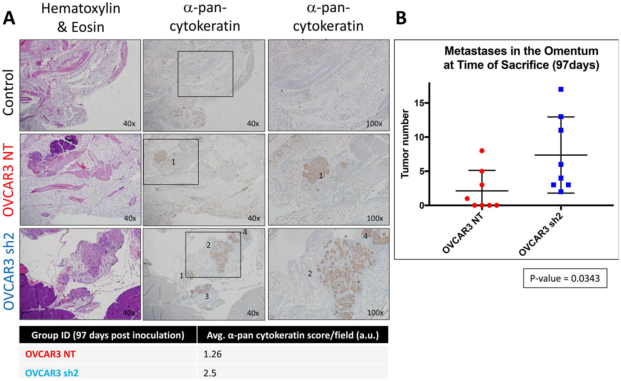 SUSD2-KD mice showed increased tumor burden in the omentum at initial time of sacrifice.