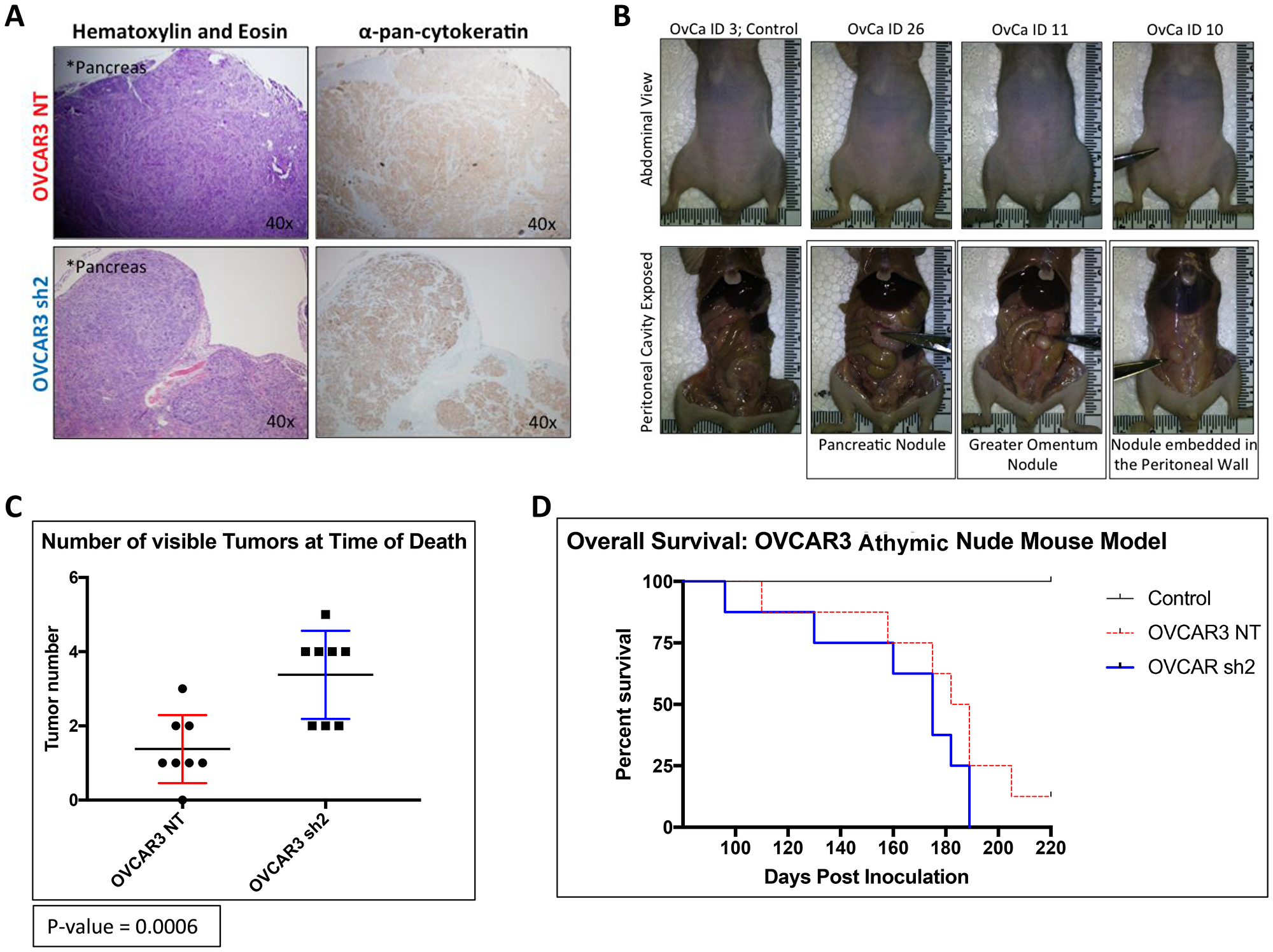 OVCAR3-NT mice lived significantly longer than OVCAR3 SUSD2-KD mice.