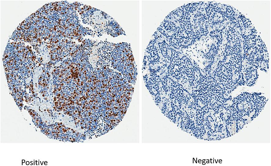Immunohistochemistry staining for survivin.