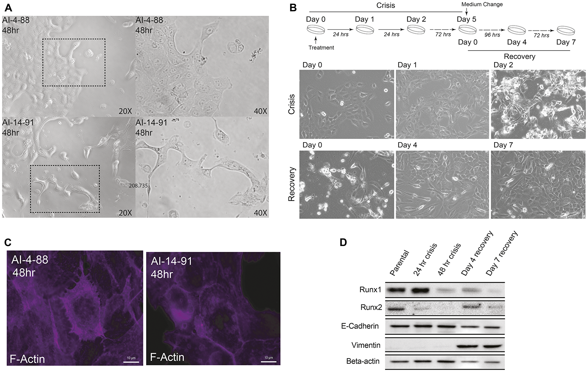 Disrupting transcriptional activity of the RUNX1-CBF Complex in MCF10A cells leads to a transformed cellular phenotype and EMT.