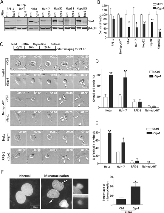 Sgo1 depletion reduced cell viabilities in HeLa and various hepatoma cells.