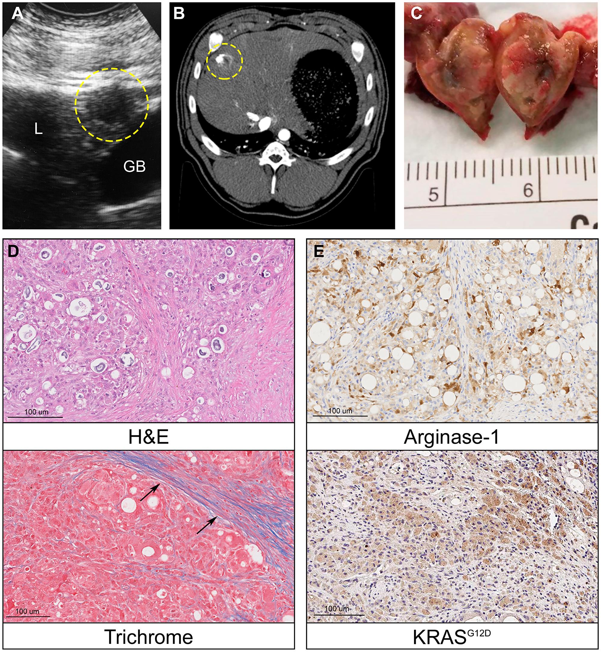 Oncopig intrahepatic HCC tumor formation.