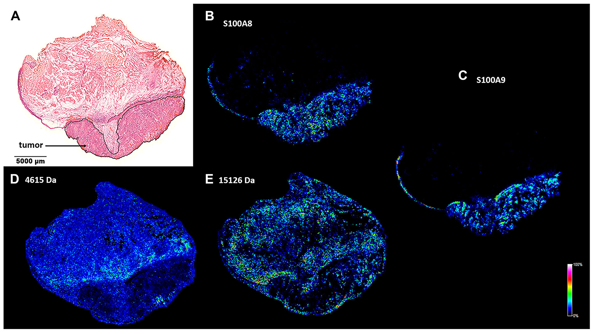 Spatial distribution of tumor marker candidate proteins in a HNSCC clinical specimen.