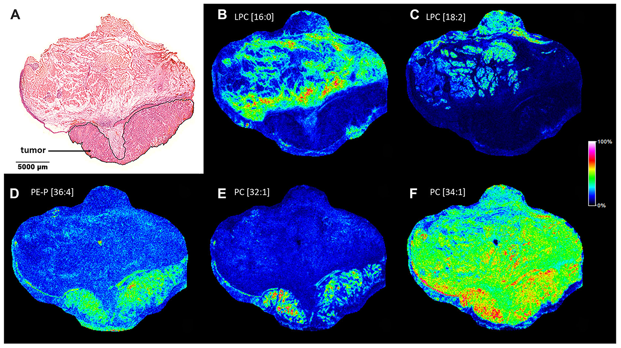 Lipid MS images of the HNSCC sample.