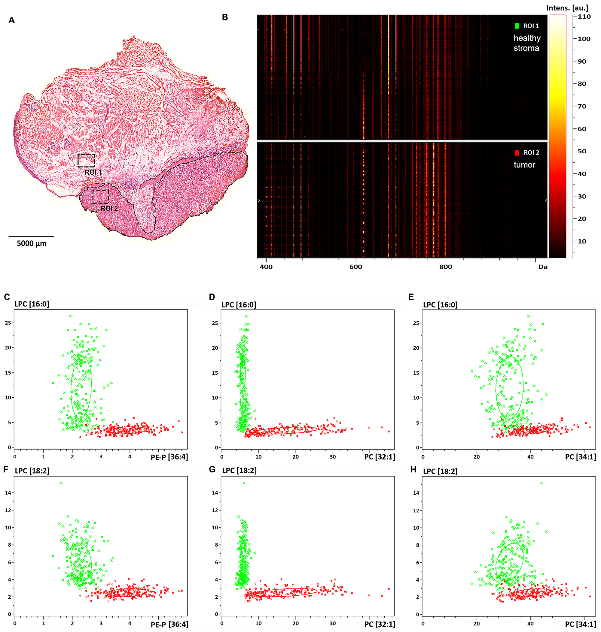 Lipid expression and spatial distribution analysis of biopsy size regions of the tissue sample.
