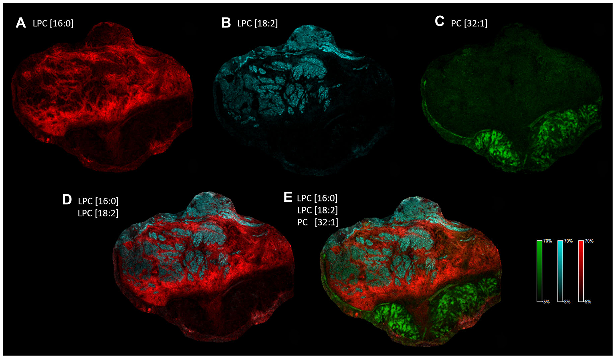 Heterogeneous distribution of specific LPC and PC species in the tissue sample.