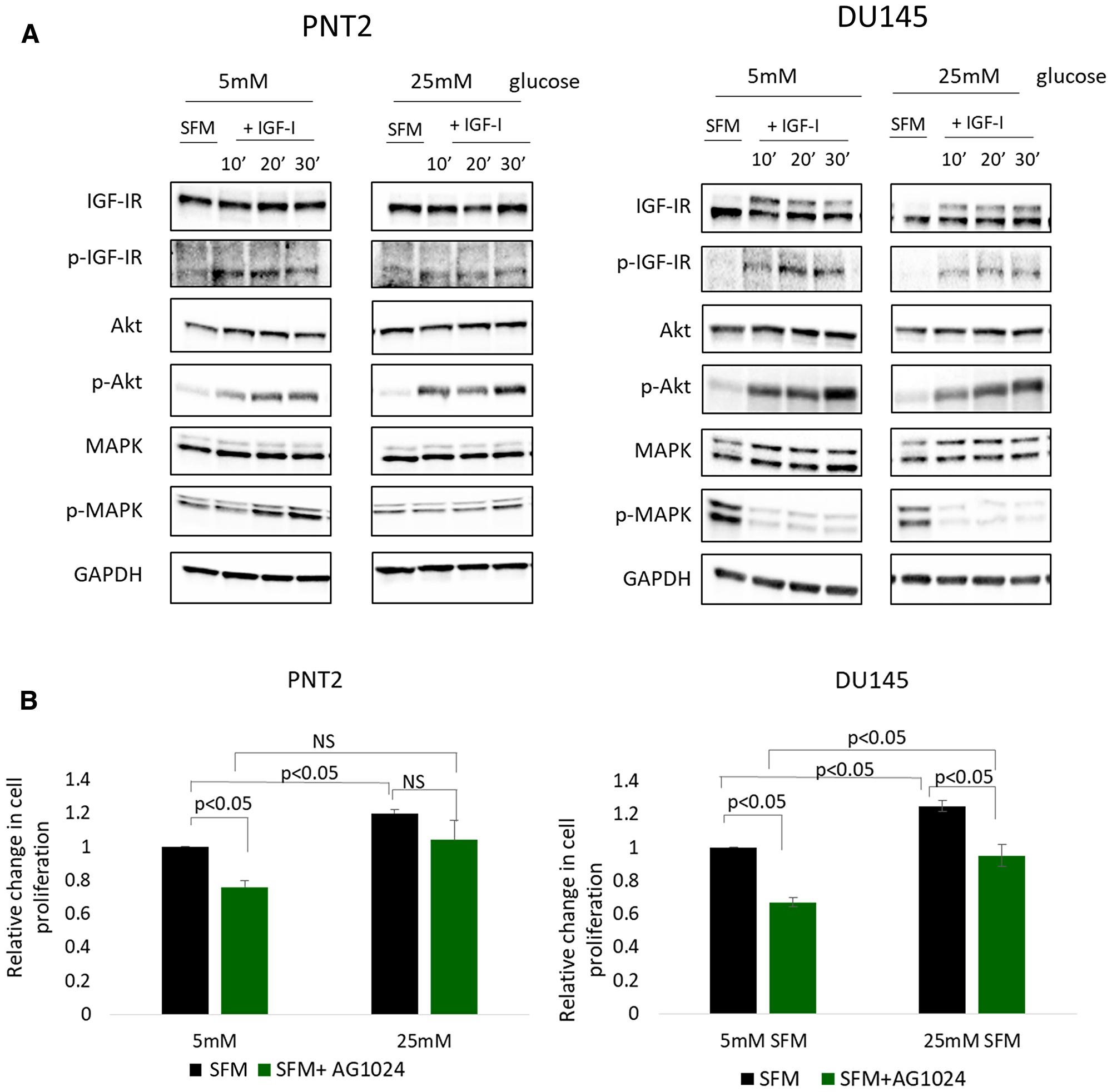 High glucose-induced EMT in prostate cells is independent of IGFI-R.