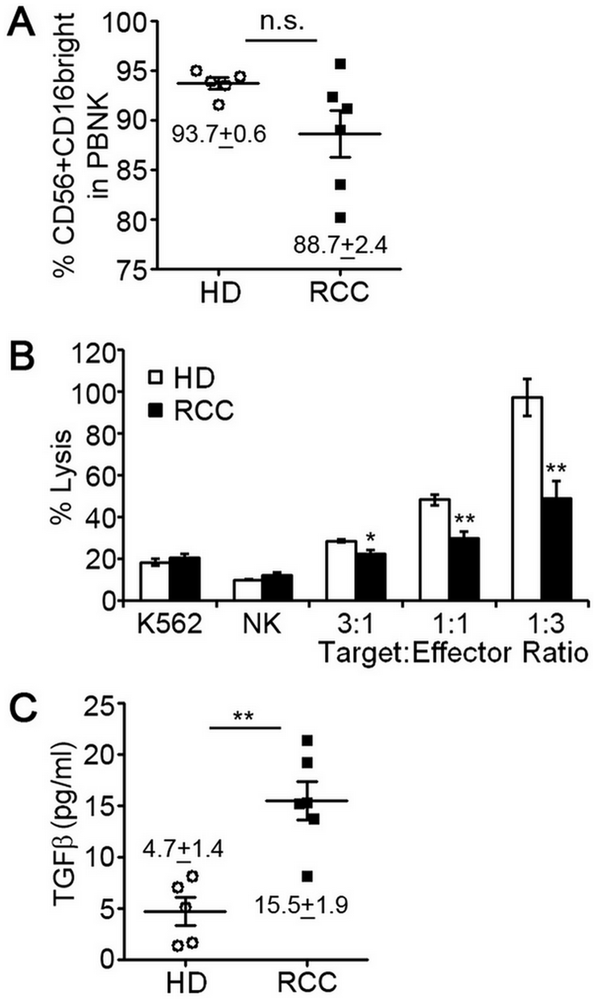 Peripheral blood NK cells of RCC patients have decreased cytotoxic function.