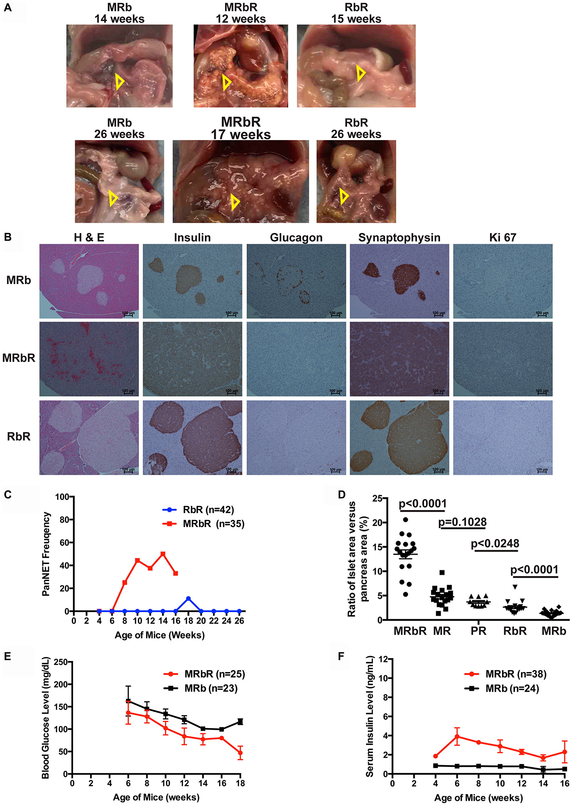 Concomitant loss of Men1 and Rb1 accelerated PanNET development in MRbR mice.