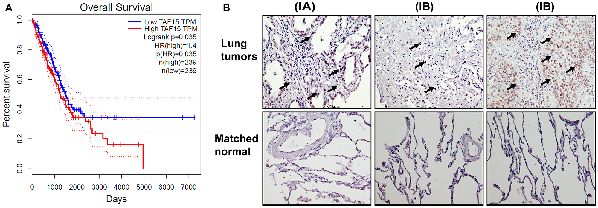 TAF15 is overexpressed in NSCLC that correlates to poor overall survival.