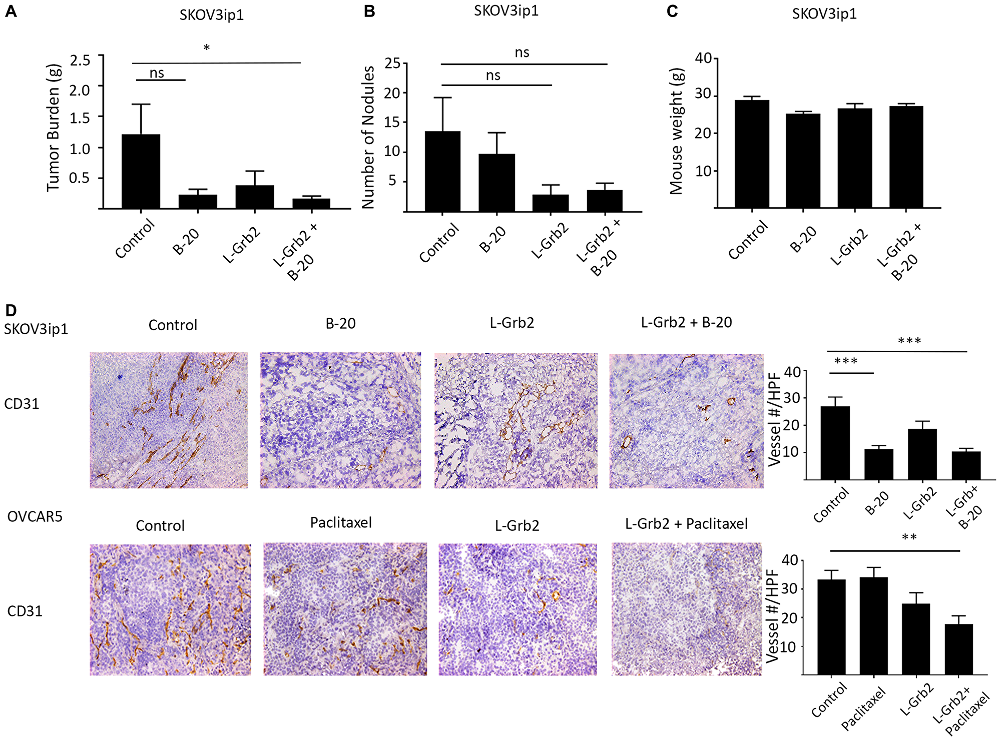 In vivo effects of treatment with L-Grb2 in combination with anti-angiogenic therapy in an ovarian tumor model.
