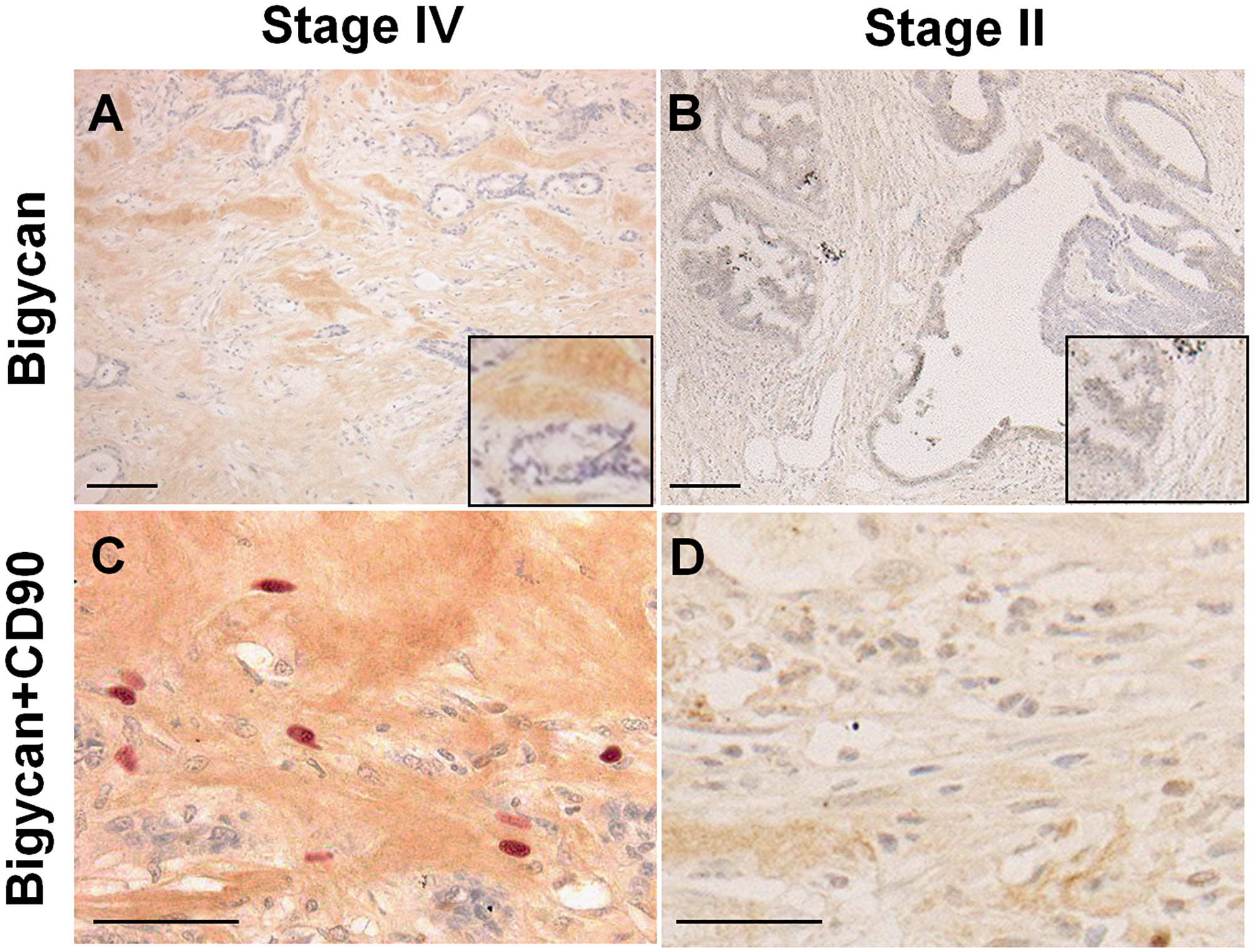 Expression of biglycan and CD90-positive mesenchymal stem cells in cancer stroma.