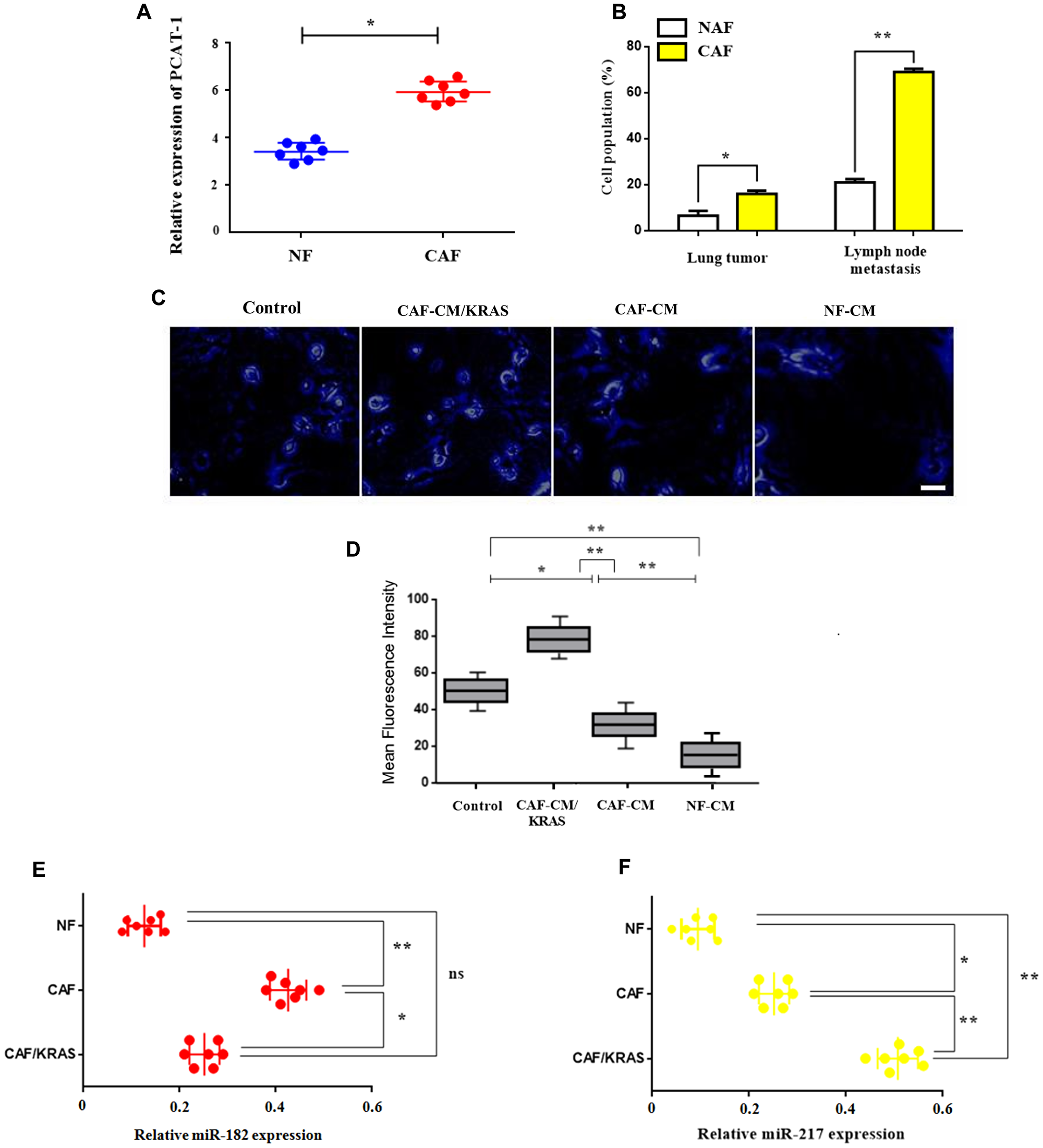 Enhanced expression of PCAT-1 triggers CAF infiltration via miR182/miR217 amplification.