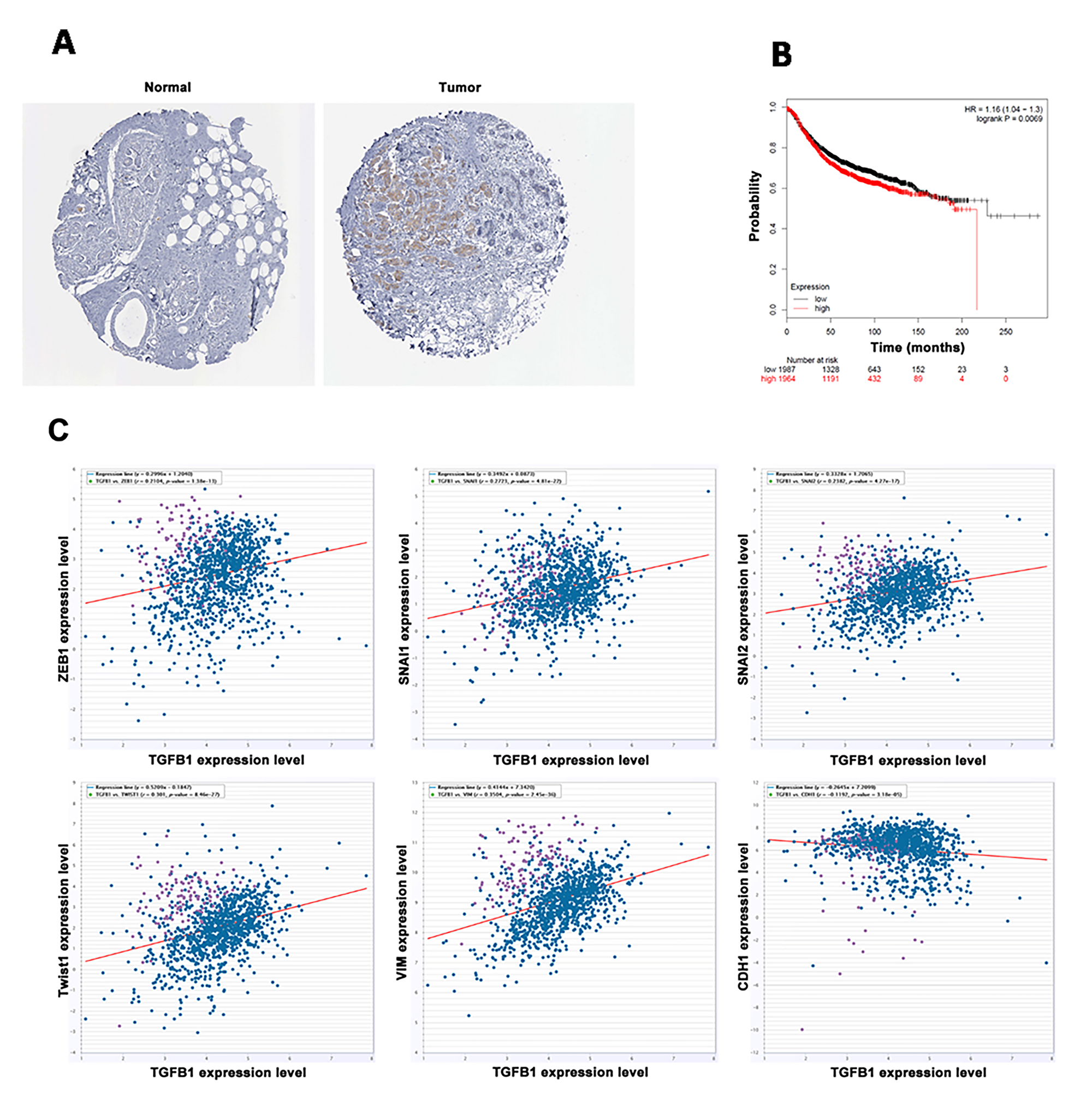 TGF-β1 was highly expressed in breast cancer and predicted poor prognosis.