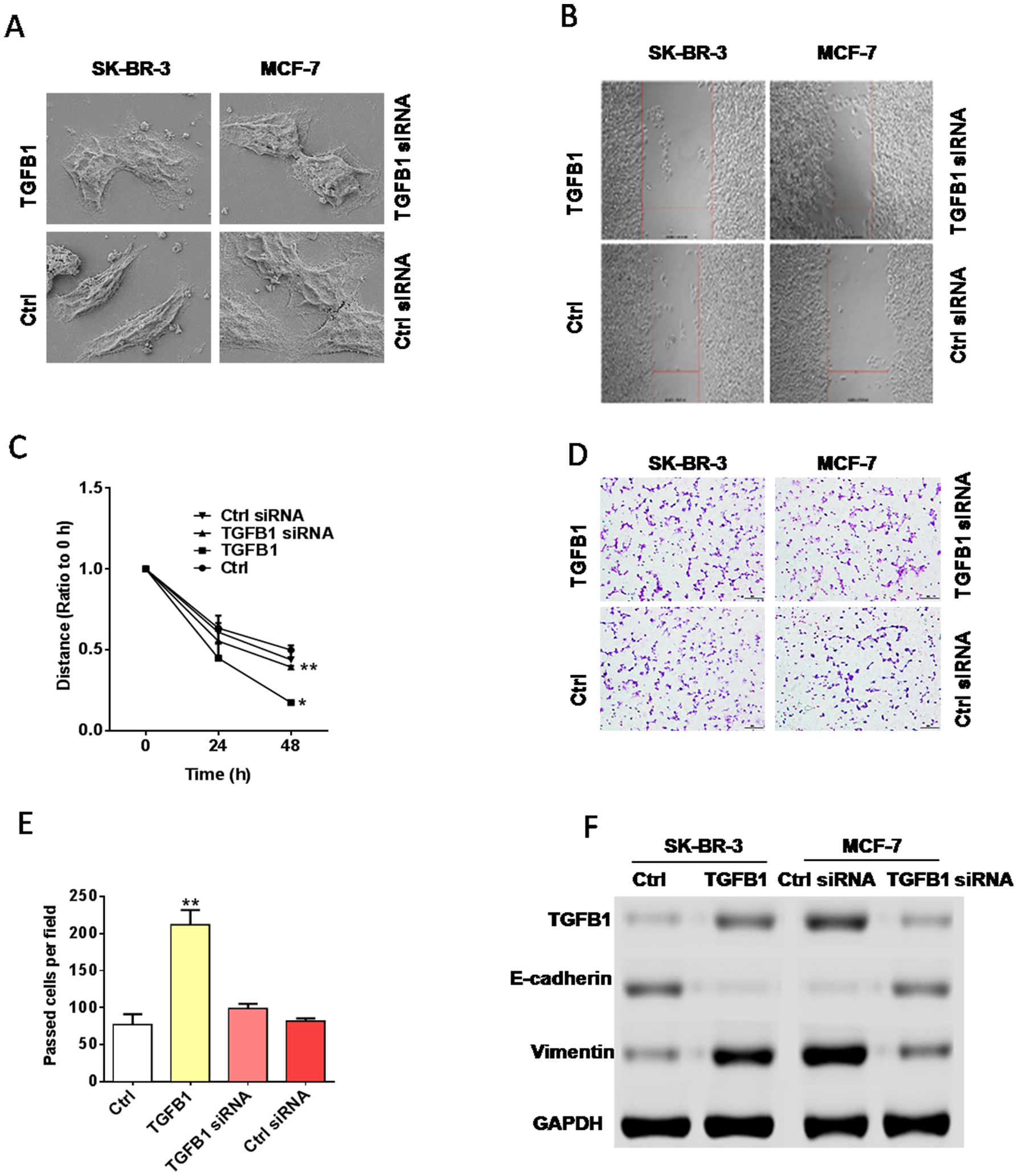 TGF-β1 promoted EMT in breast cancer.