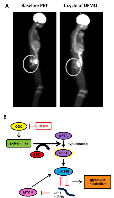 A) Patient PET scans.