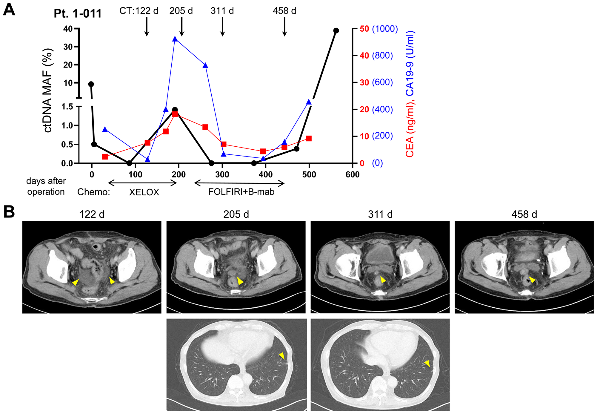 Dynamic change of mutated ctDNA level by chemotherapies.