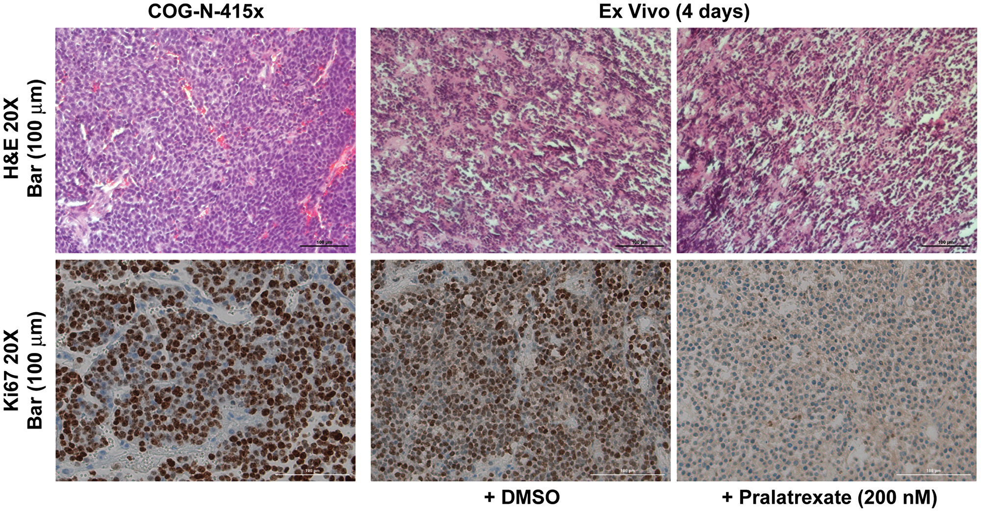 Ex vivo tissue culture model recapitulated antitumor response to pralatrexate.