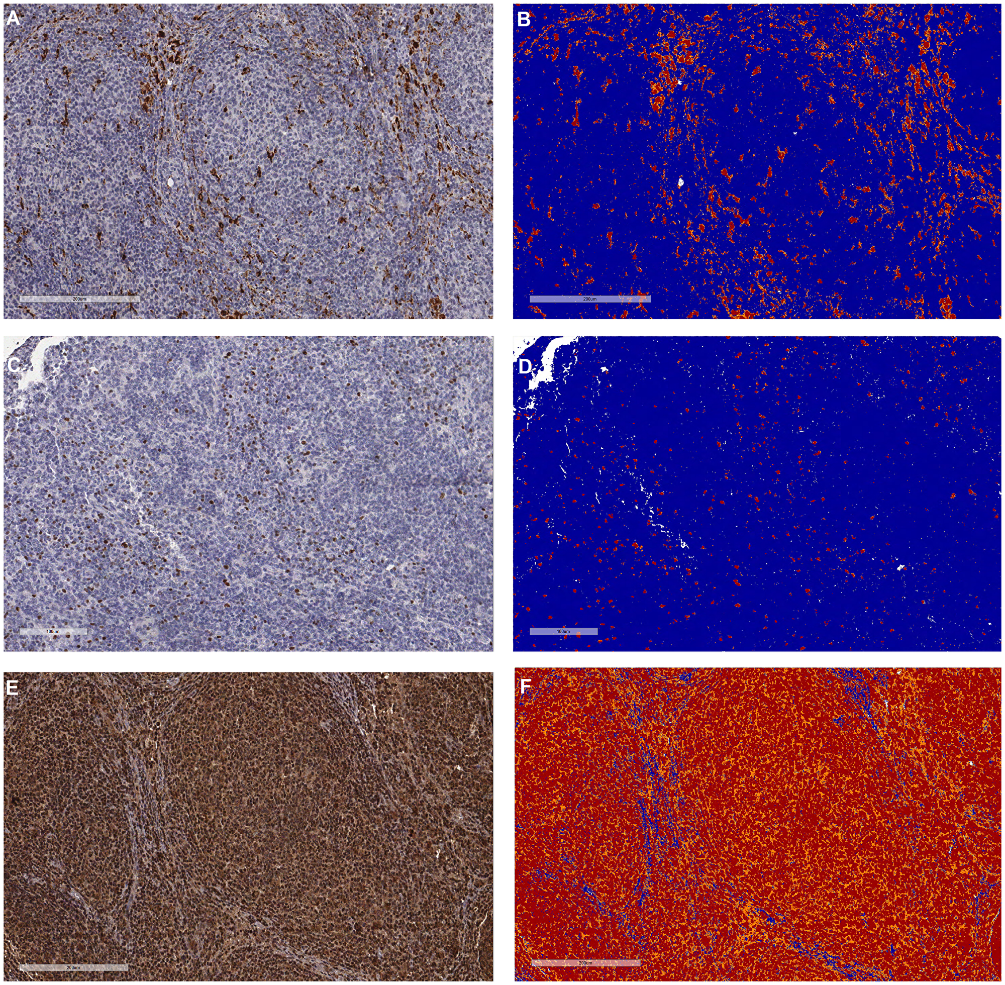 Representative pictures of the tumor microenvironment assessments by immunohistochemistry in follicular lymphoma.