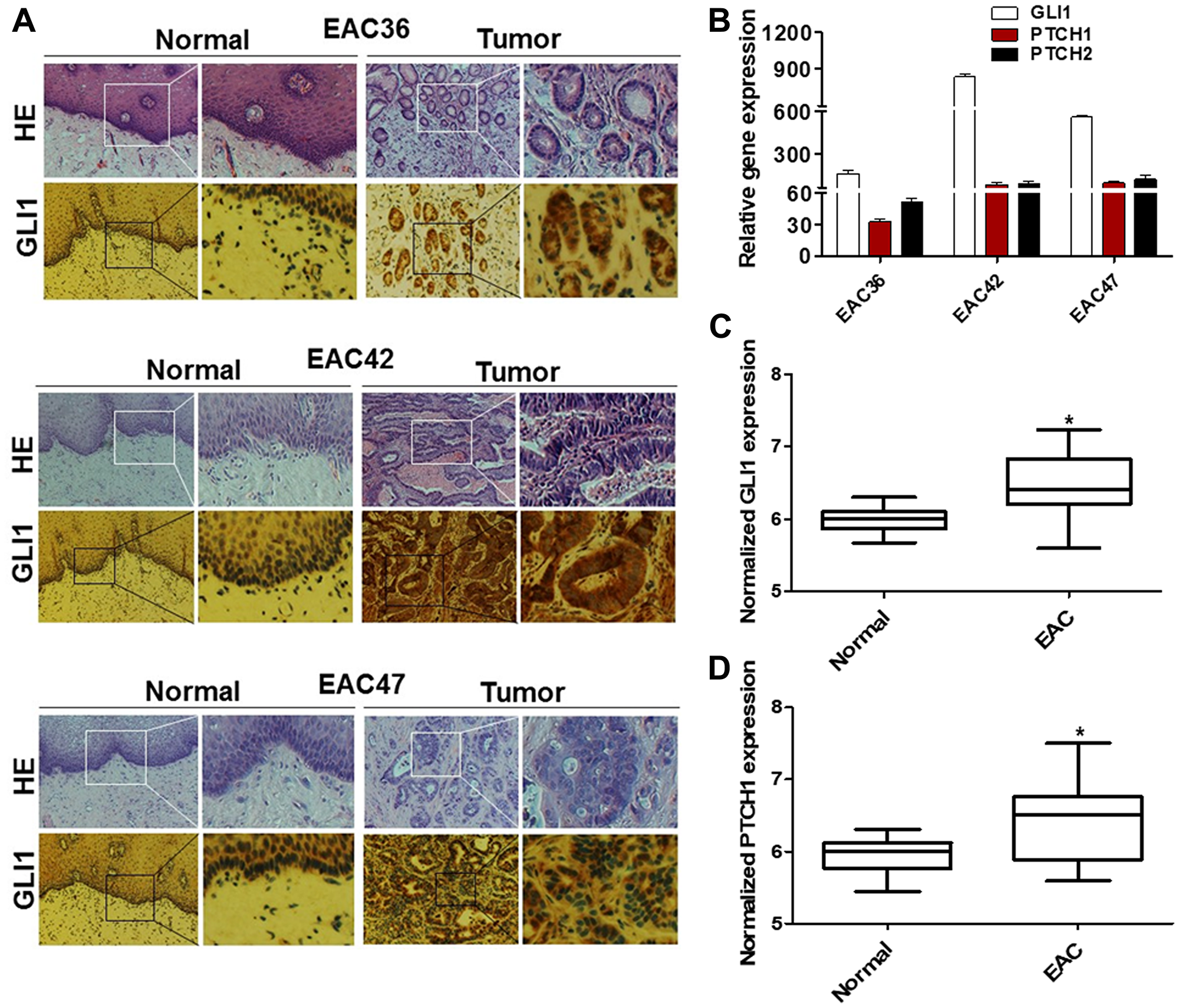 GLI1 activity is increased in human EAC tumors.
