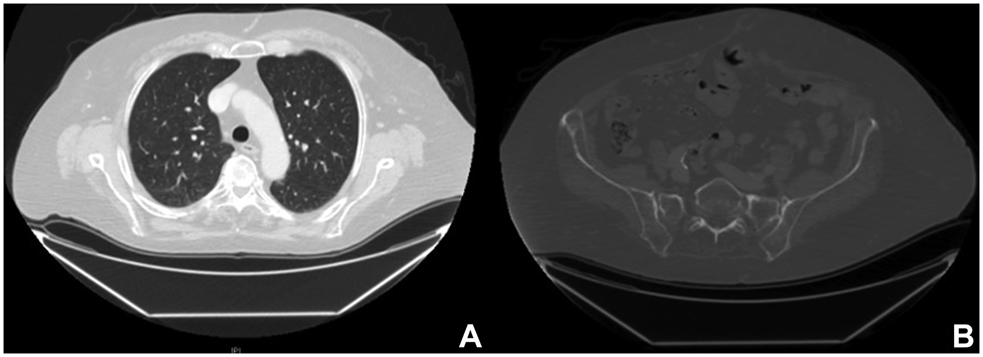 Radiological images after combined targeted therapy.