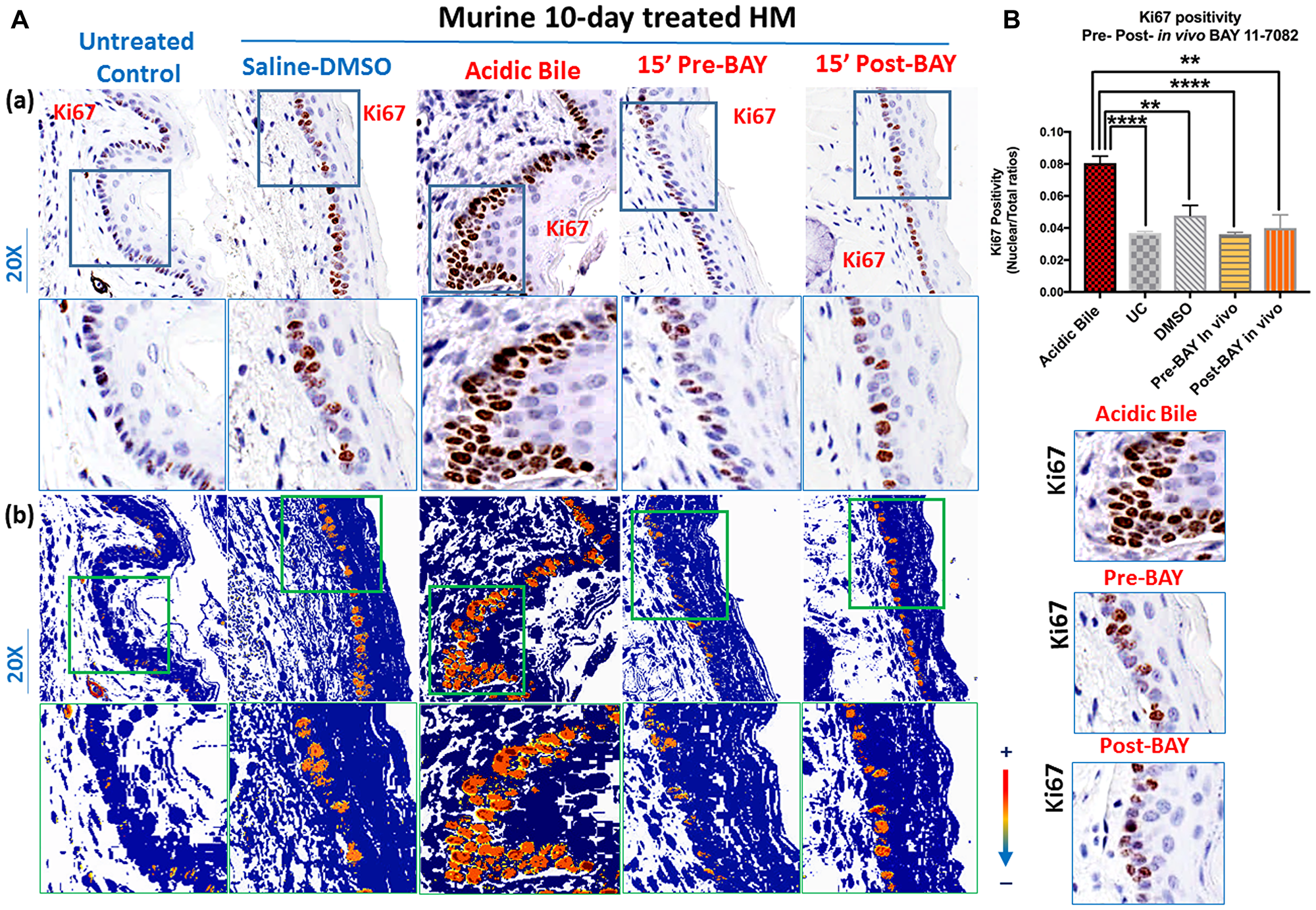 In vivo topical pre- or post-application of BAY 11-7082 prevents acidic bile-induced cell proliferation markerKi67 in 10-day exposed murine HM.