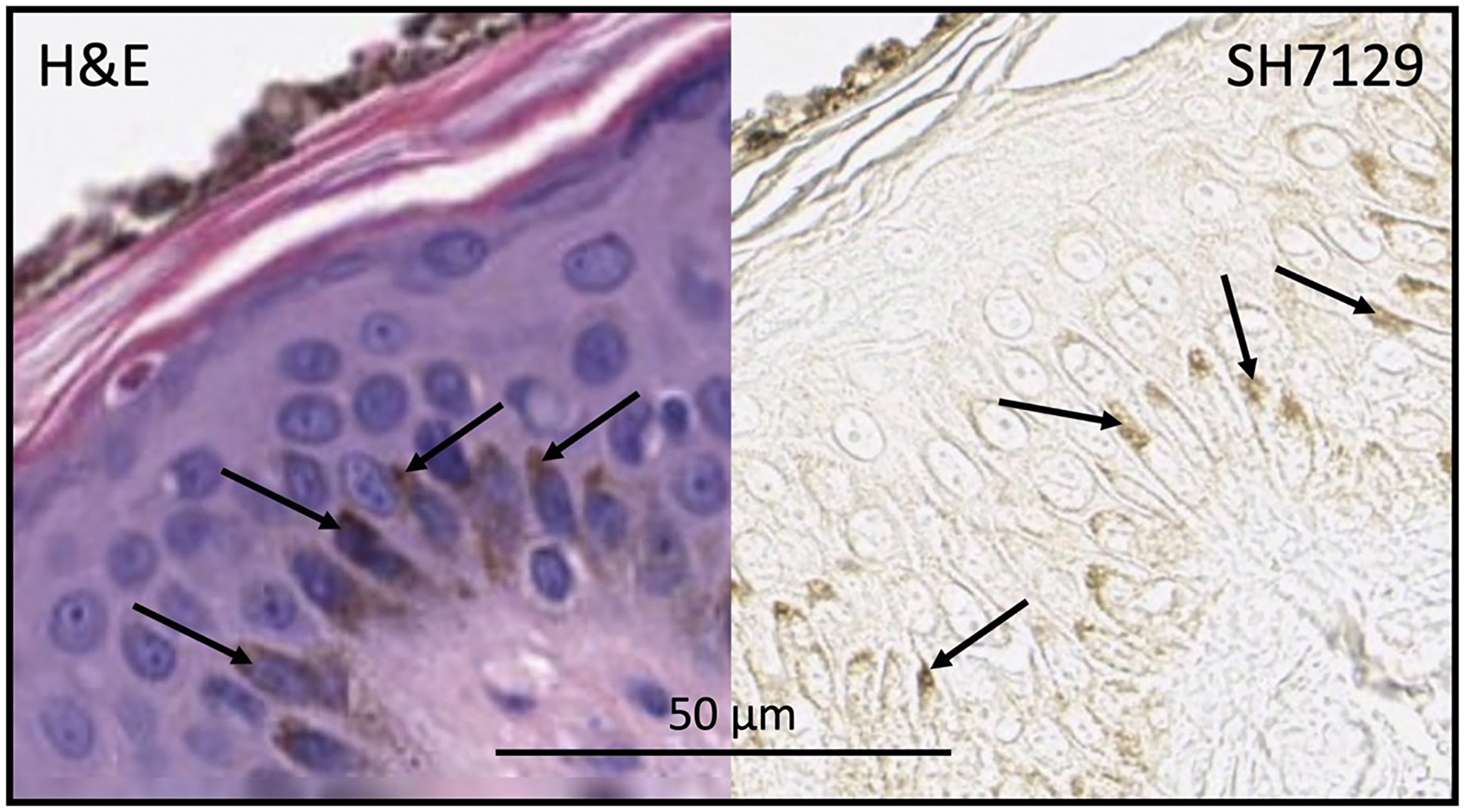 Skin section stained with H&E (without SH7129) or SH7129 (without H&E) showing melanin (arrows) in basal keratinocytes.