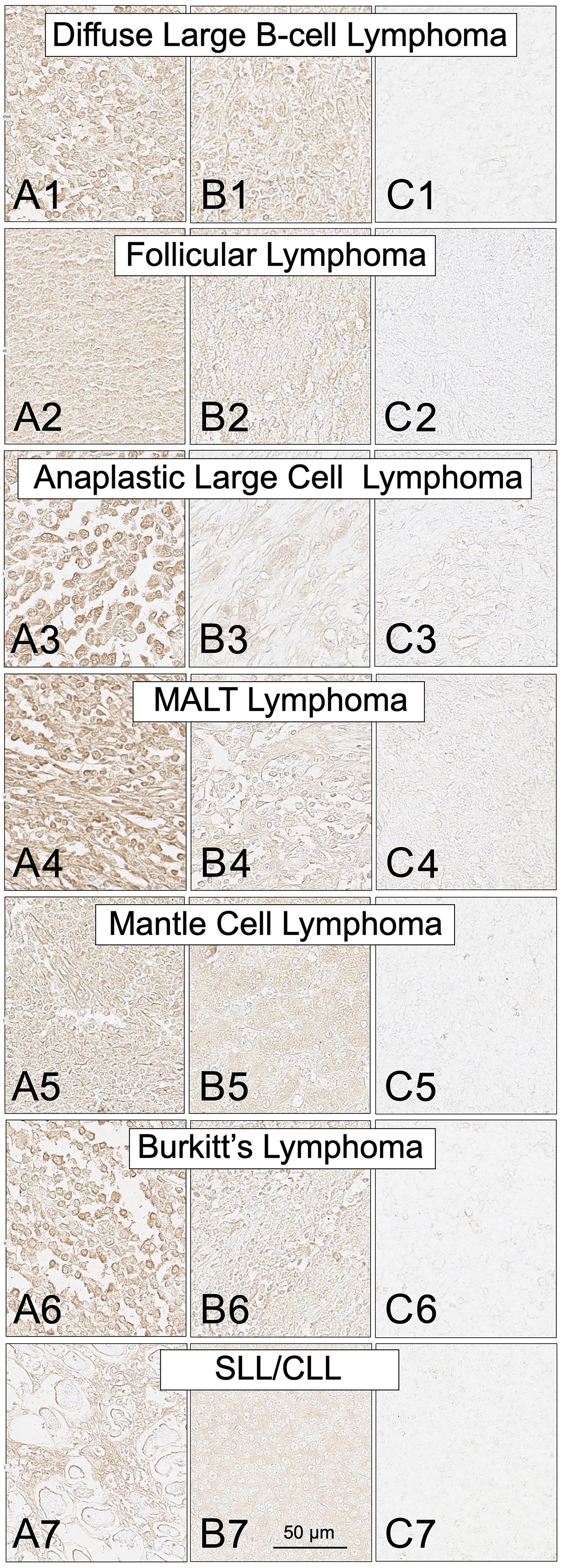 SH7129 staining of tumor biopsy sections from seven subtypes of non-Hodgkin's lymphoma.