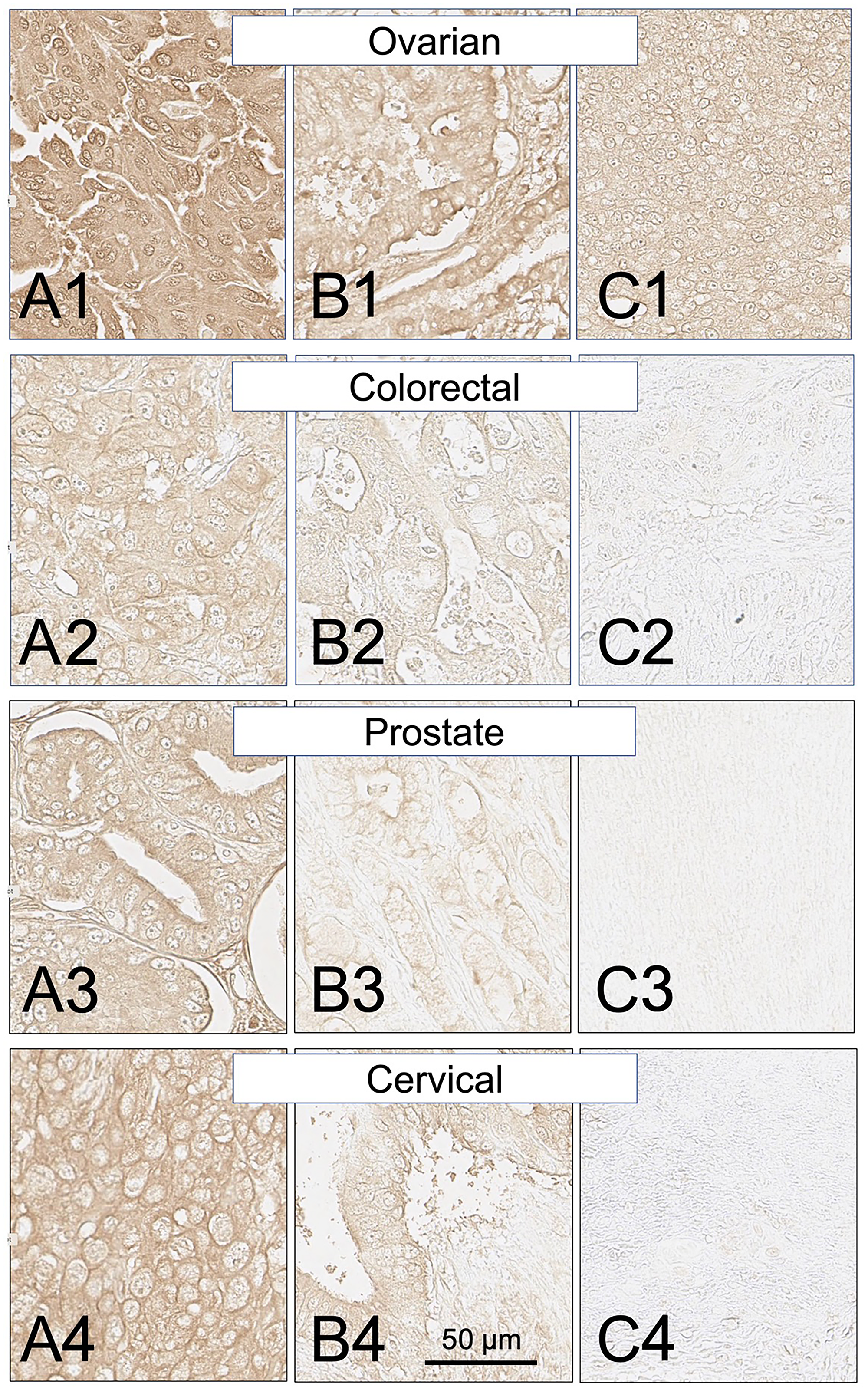 SH7129 stained sections of representative ovarian, colorectal, prostate, and cervical cancers expressing HLA-DRs targeted by SH7139.