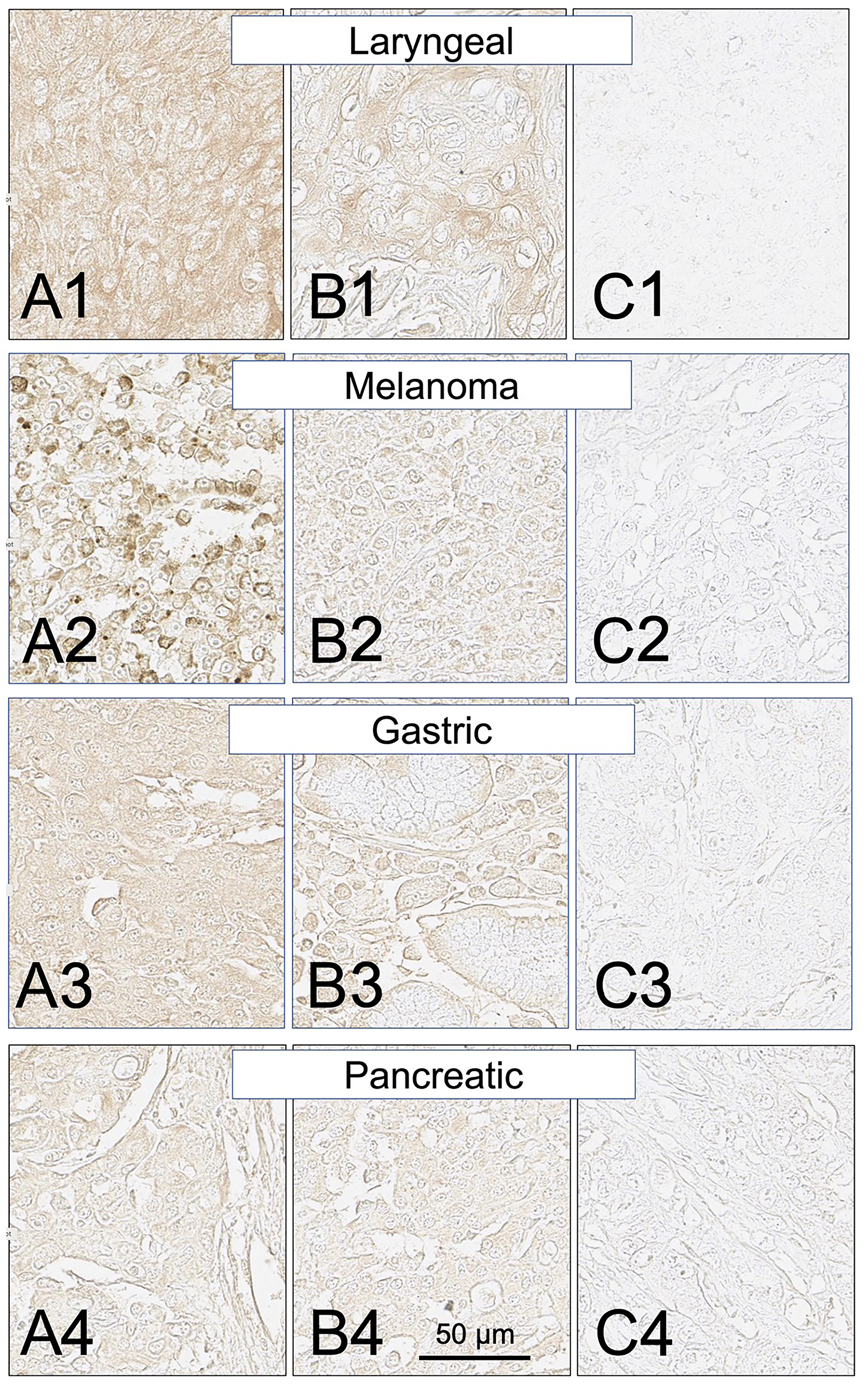 SH7129 stained sections of representative laryngeal, melanoma, gastric, and pancreatic cancers expressing HLA-DRs targeted by SH7139.