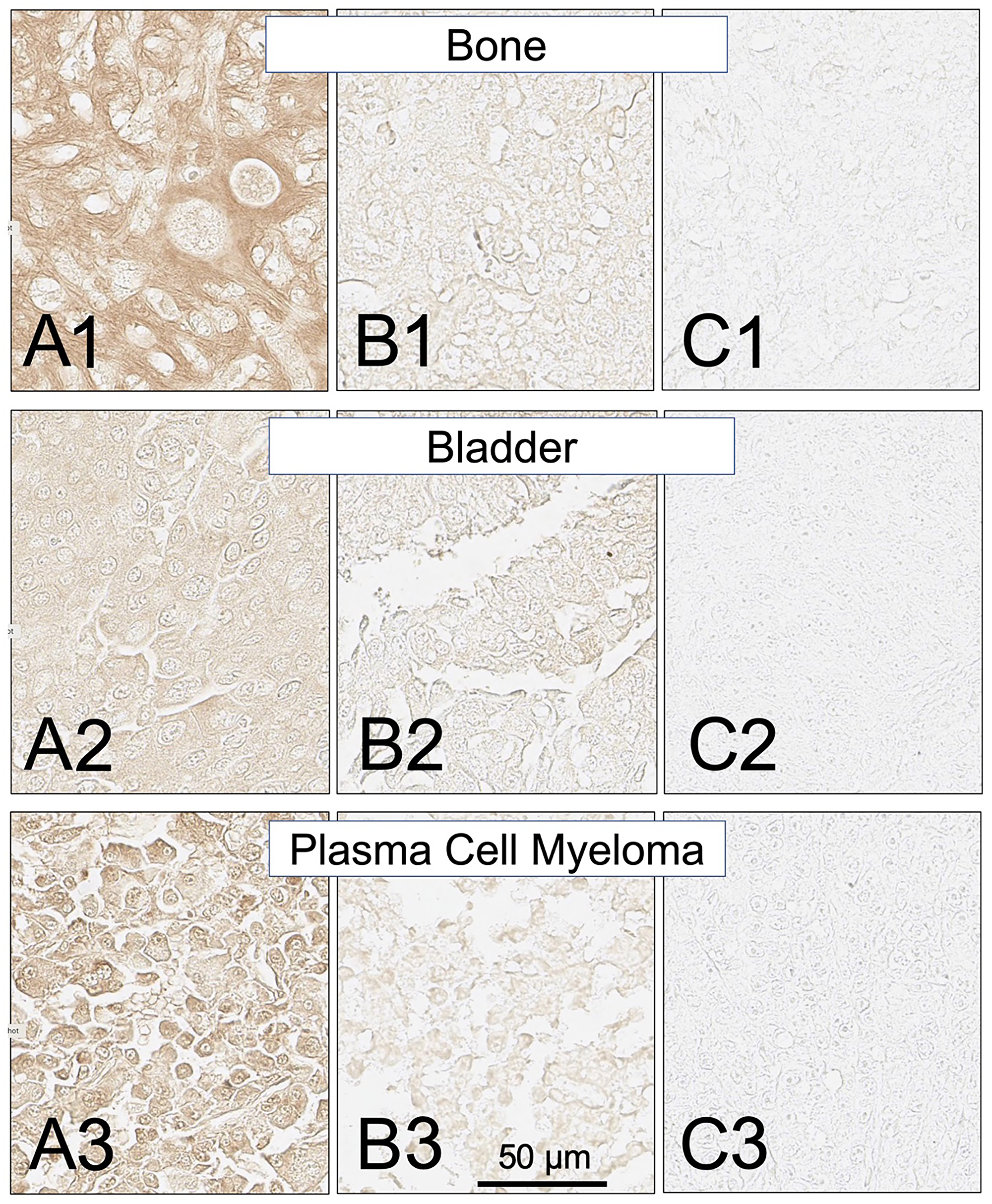 SH7129 stained sections of representative bone, bladder and plasma cell myeloma cancers expressing HLA-DRs targeted by SH7139.