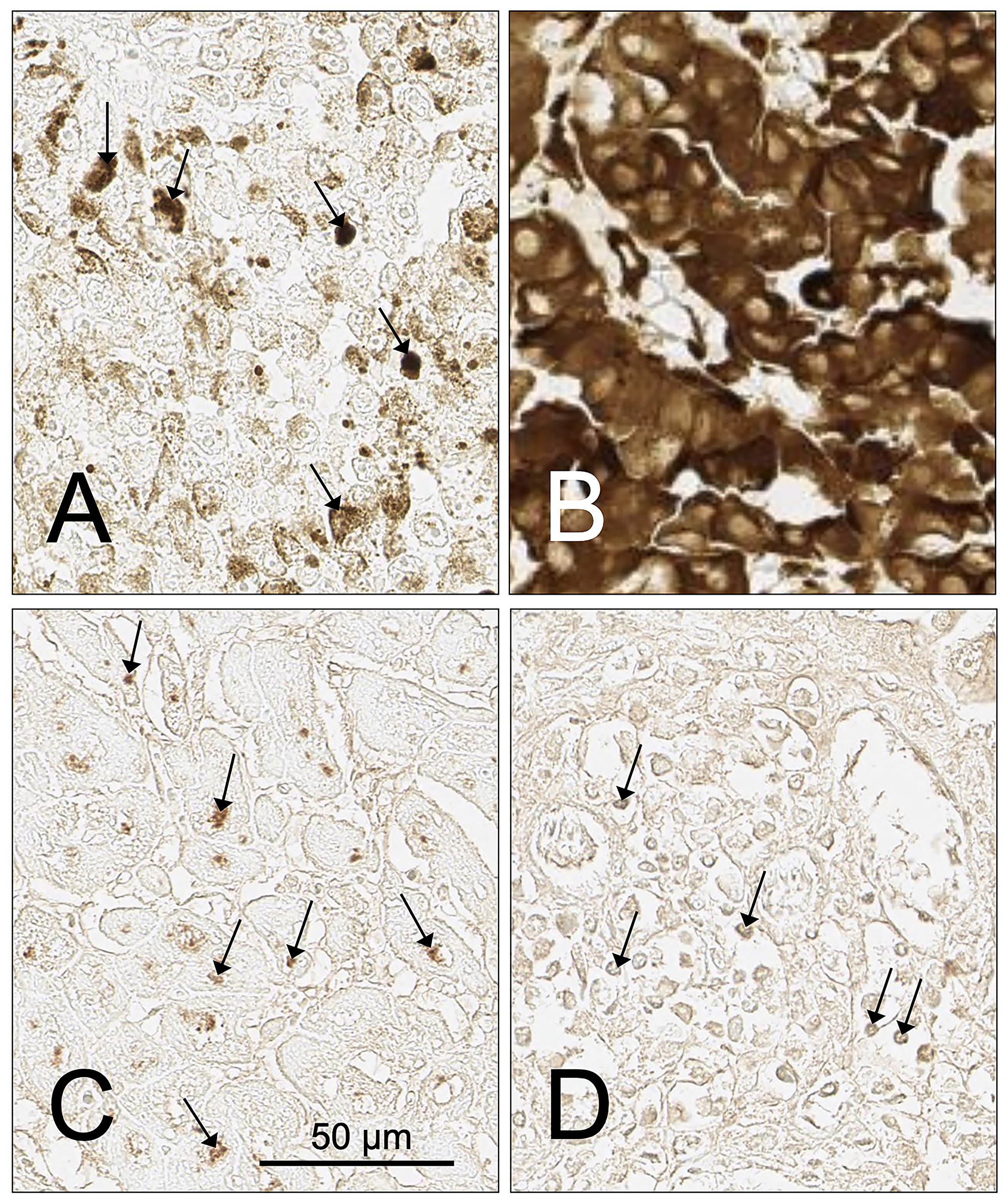 Examples of tumor cases with infiltrating lymphocytes or cells containing pigment that impact or prevent the assessment of SH7129 binding using DAB as a substrate.