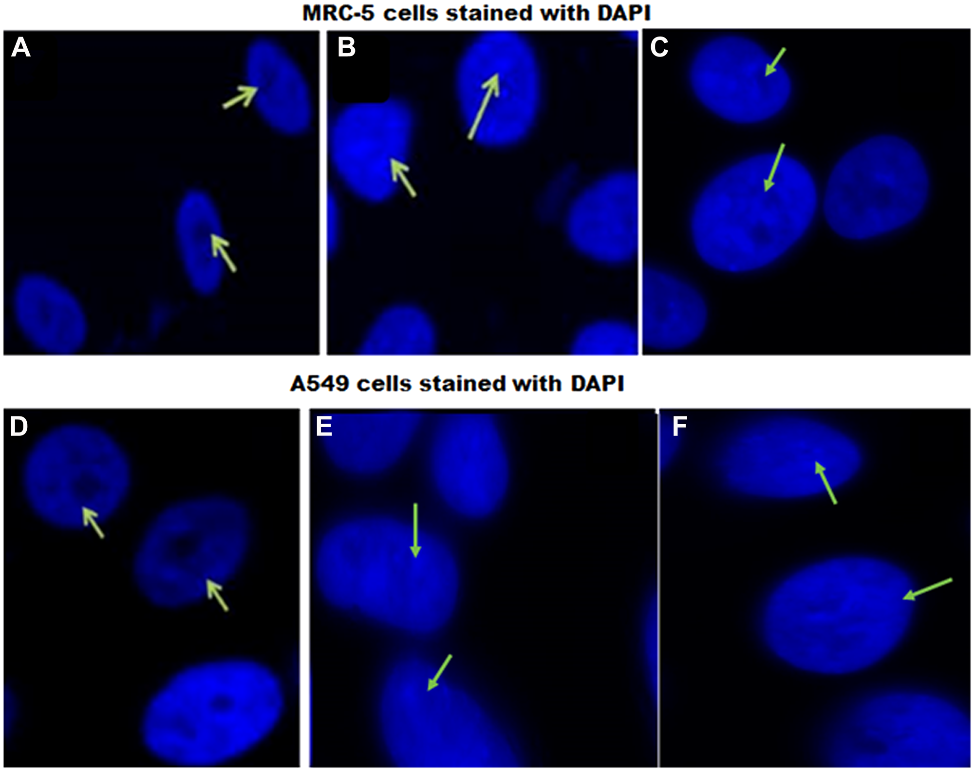 DAPI staining of MRC-5 and A549 cells in response to EFV.