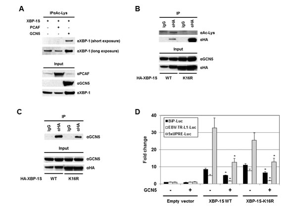 Acetylation of XBP-1S has no effect on XBP-S mediated activation of UPR genes.